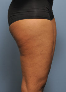 Severe Cellulite Treatment With Laser And Fat Injections Explore Plastic Surgery
