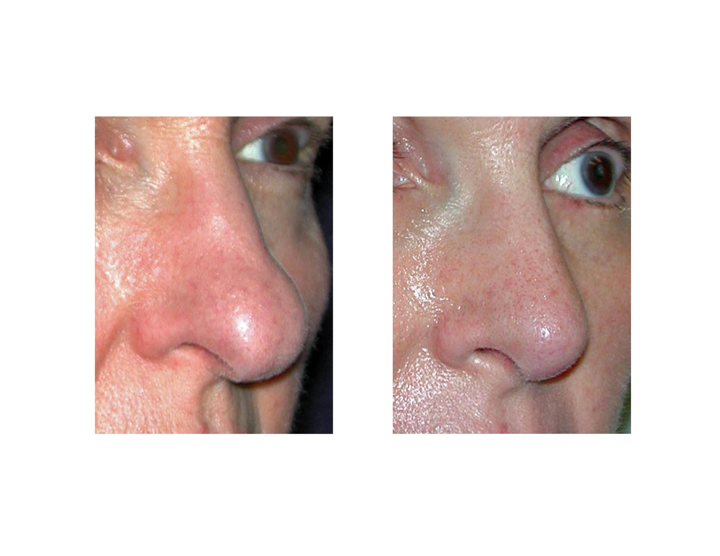 » Blog ArchiveRhinoplasty for the Aging Nose