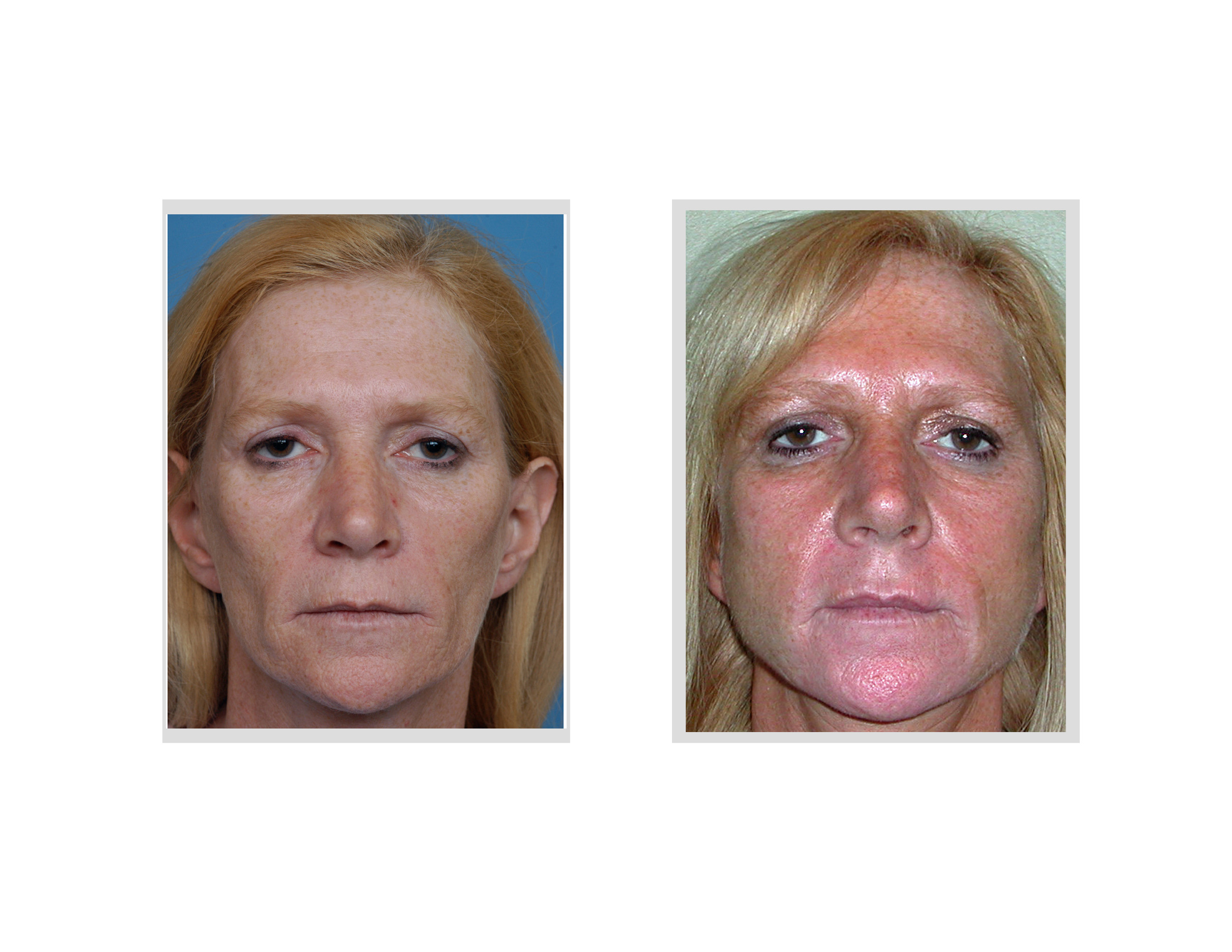 explore plastic surgery dr barry eppleyfat grafting archives as