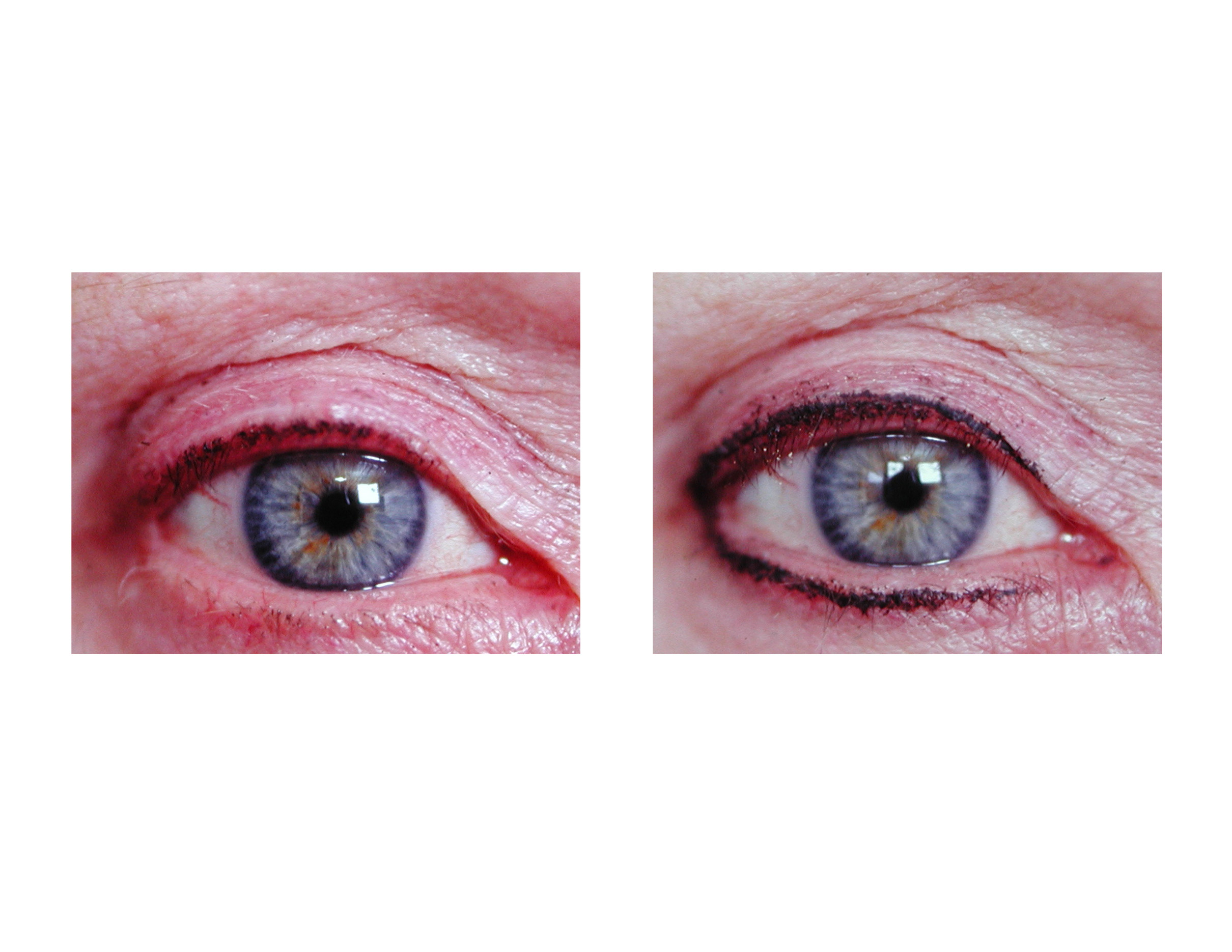 Permanent Makeup Micropigmentation In