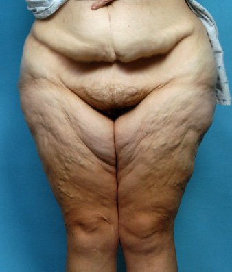 Thighplasty (Thigh Lifts) after Extreme Weight Loss - Explore Plastic  Surgery