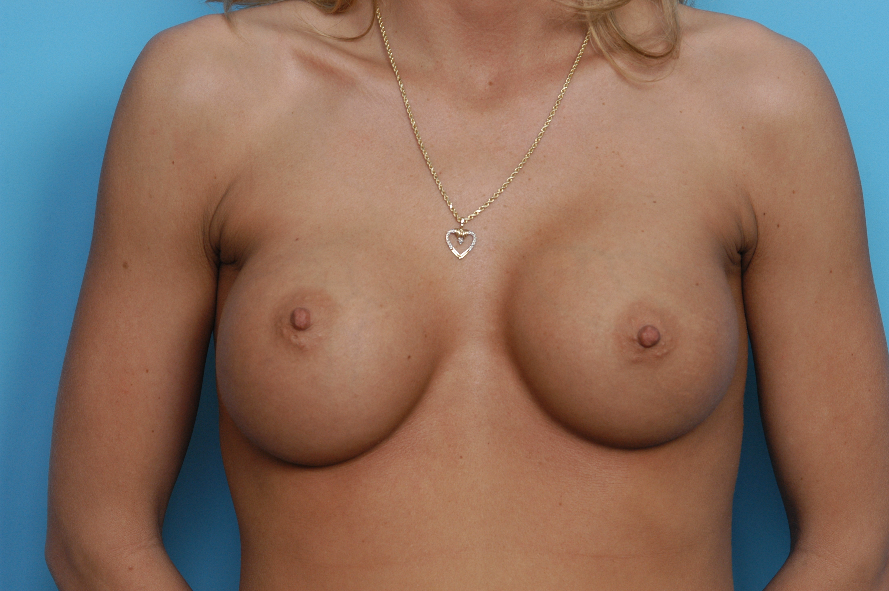 http://exploreplasticsurgery.com/wp-content/uploads/2009/02/breast-asymmetry-indianapolis-dr-barry-eppley.jpg