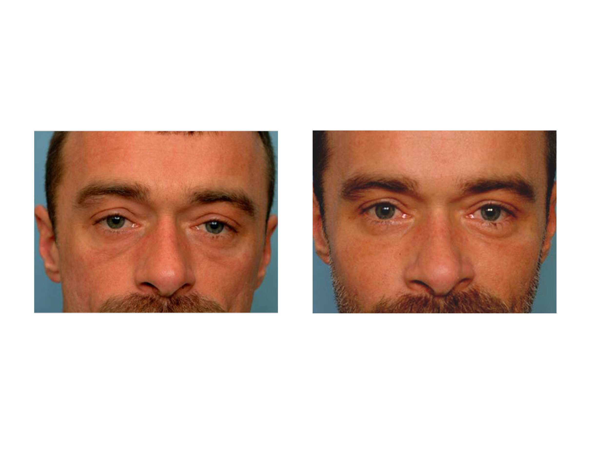 Thought was subcutaneous facial fat loss
