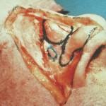 cost of rhinoplasty in nashville tn