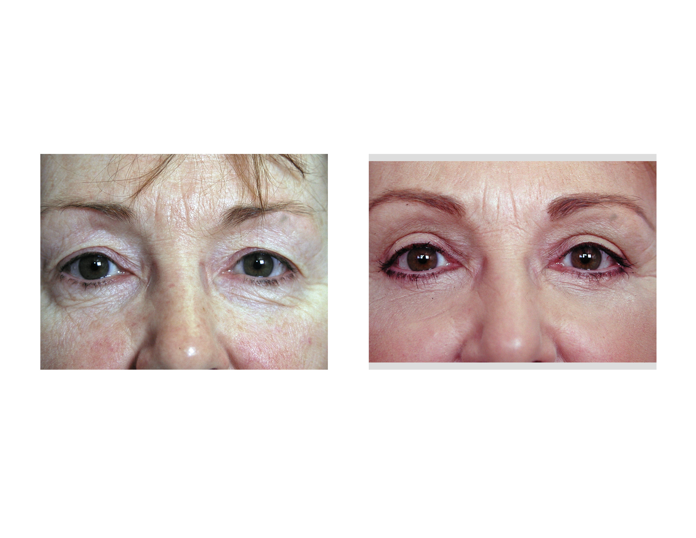 Eyelid surgery pictures healing Together We Served in the U.S. Navy - SEAL Two photo