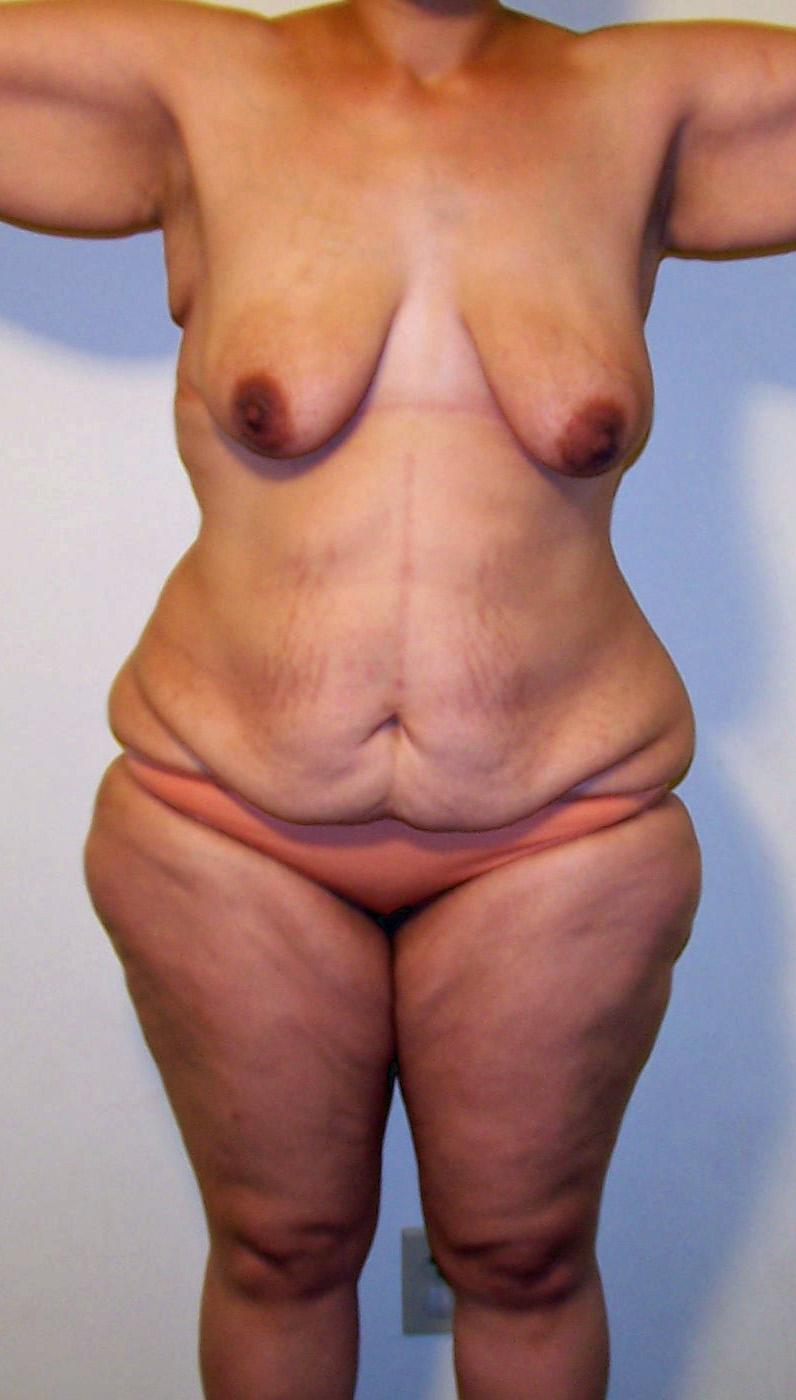 weight loss indianapolis reviews