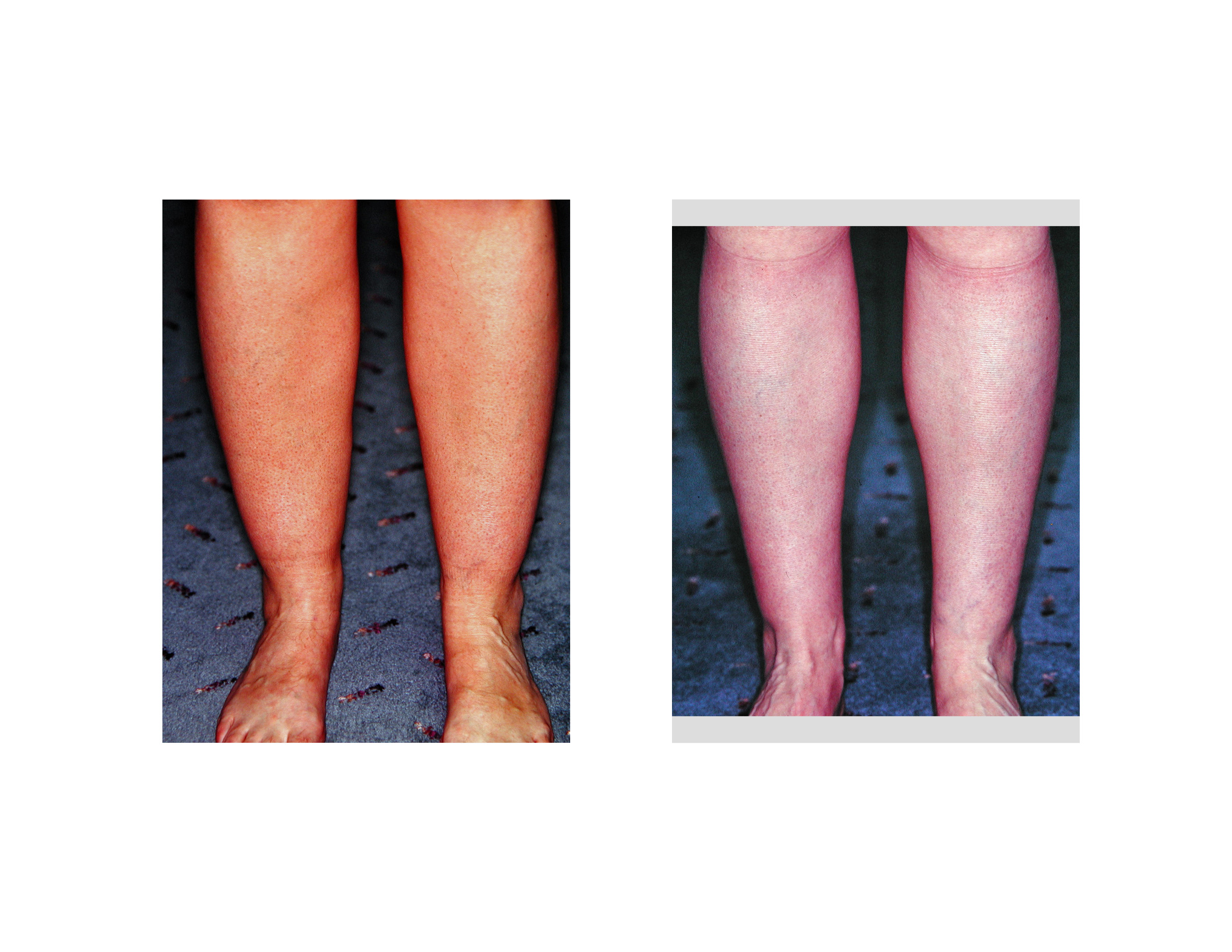 Liposuction Calves and Ankles