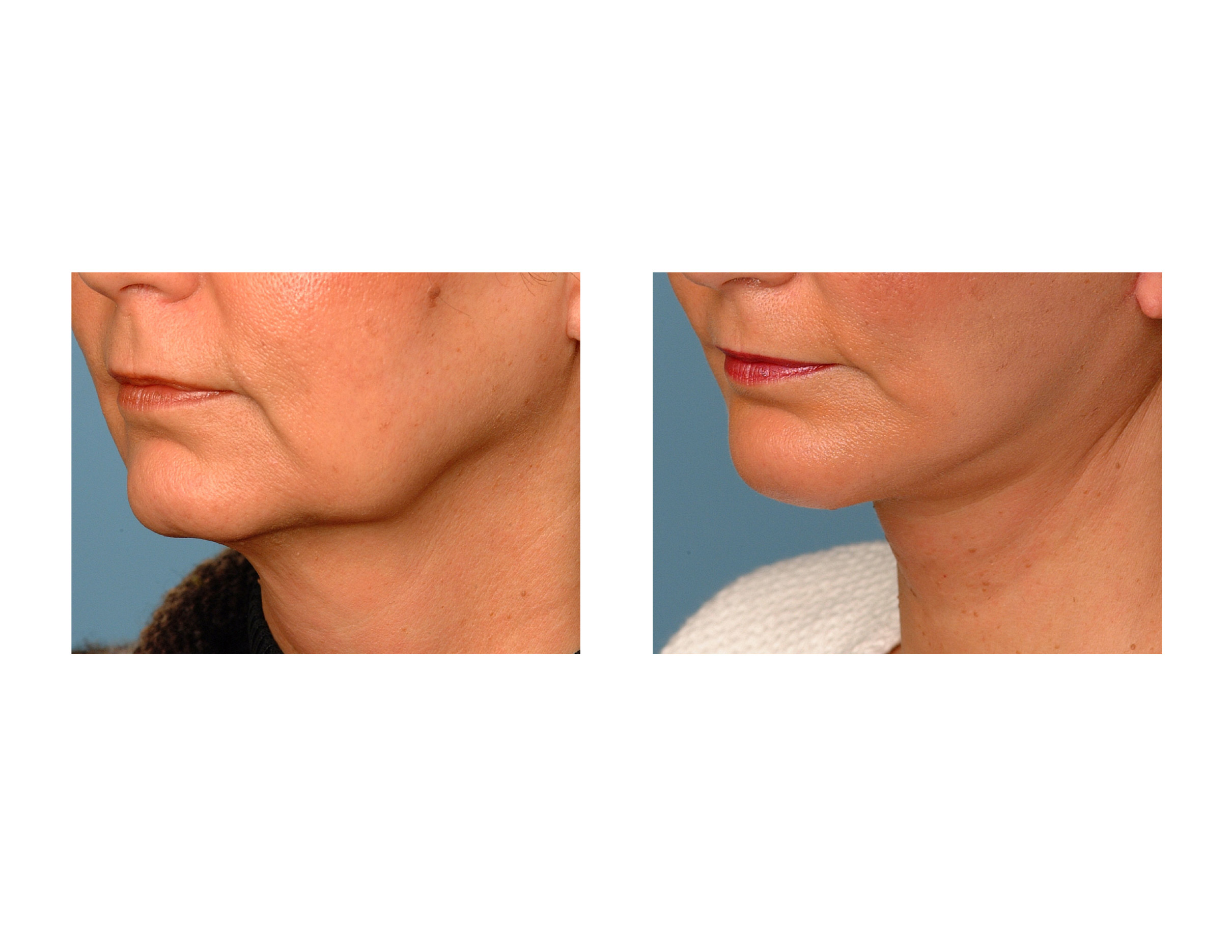 One of the earliest signs of facial aging is the development of jowls or ...