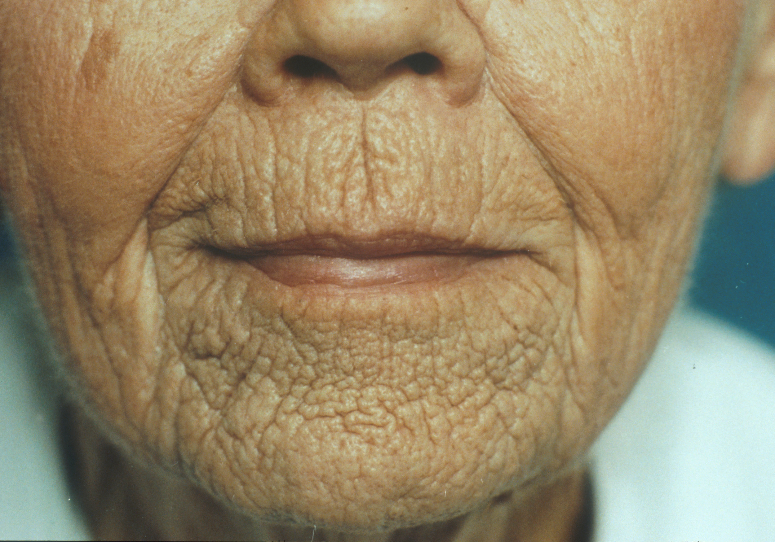 lip-wrinkle-treatments-indianapolis-dr-b