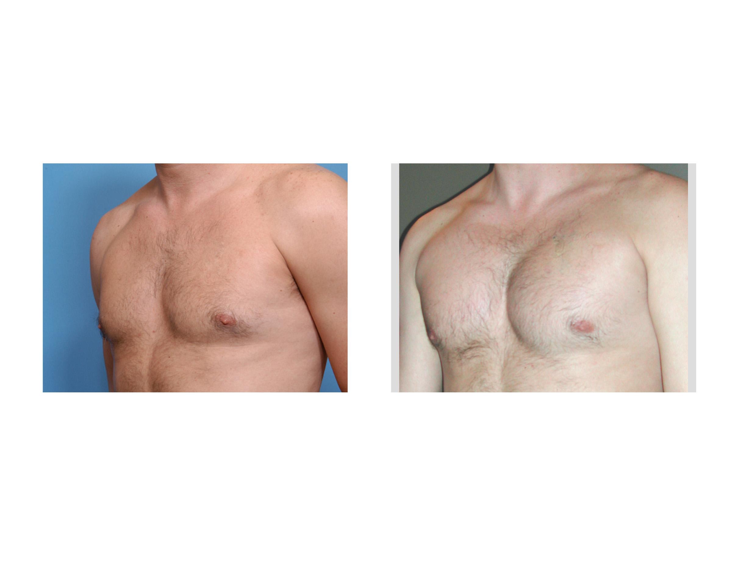 breast indianapolis Augmentation