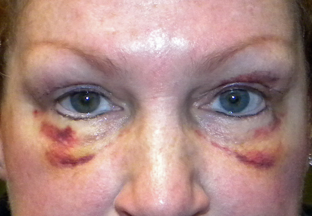 Blepharoplasty Archives Page 3 Of 5