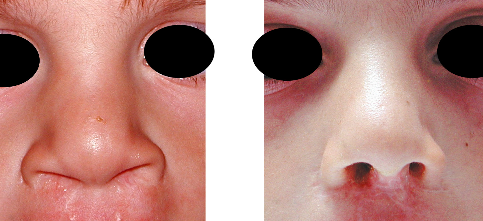 cleft lip and cleft palate essay Some infants are born with a cleft lip, cleft palate or both now, they are routinely  corrected by surgery learn more about what it means to have.