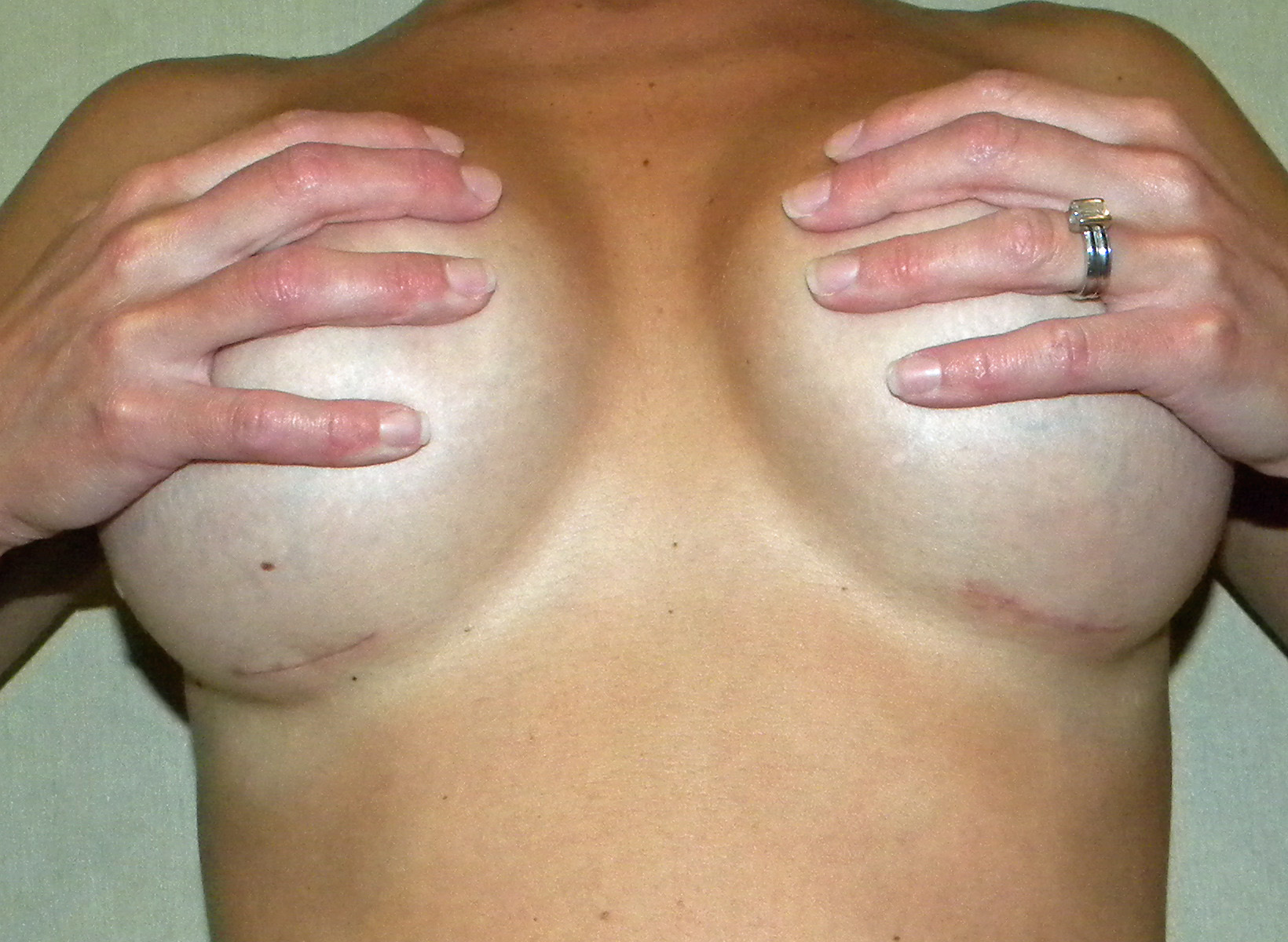 28 Mar 2011 Breast implant. or 600cc breast implants, you can use breast im
