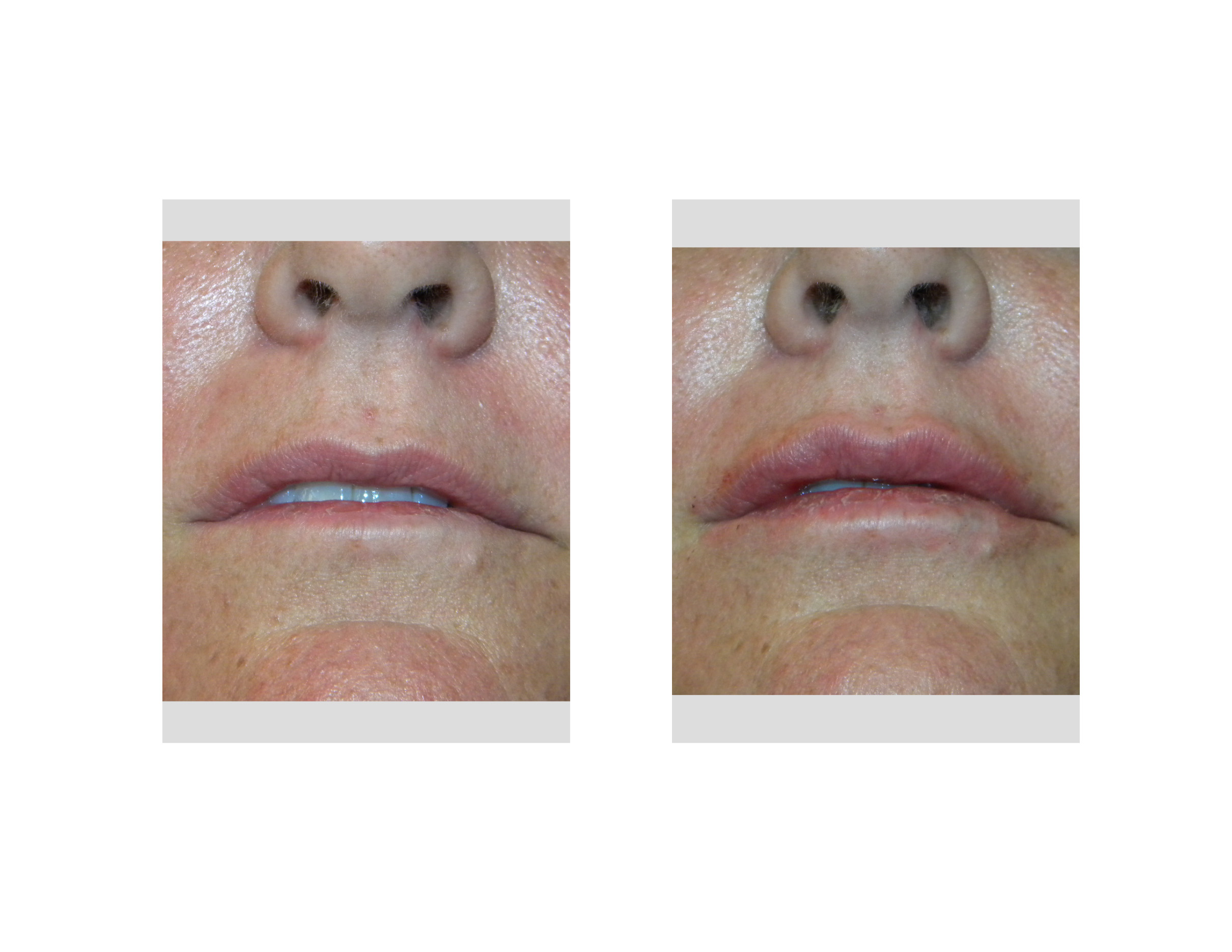 Lip augmentation with hyaluronic acid. Reviews of beauticians. How to increase lips 98