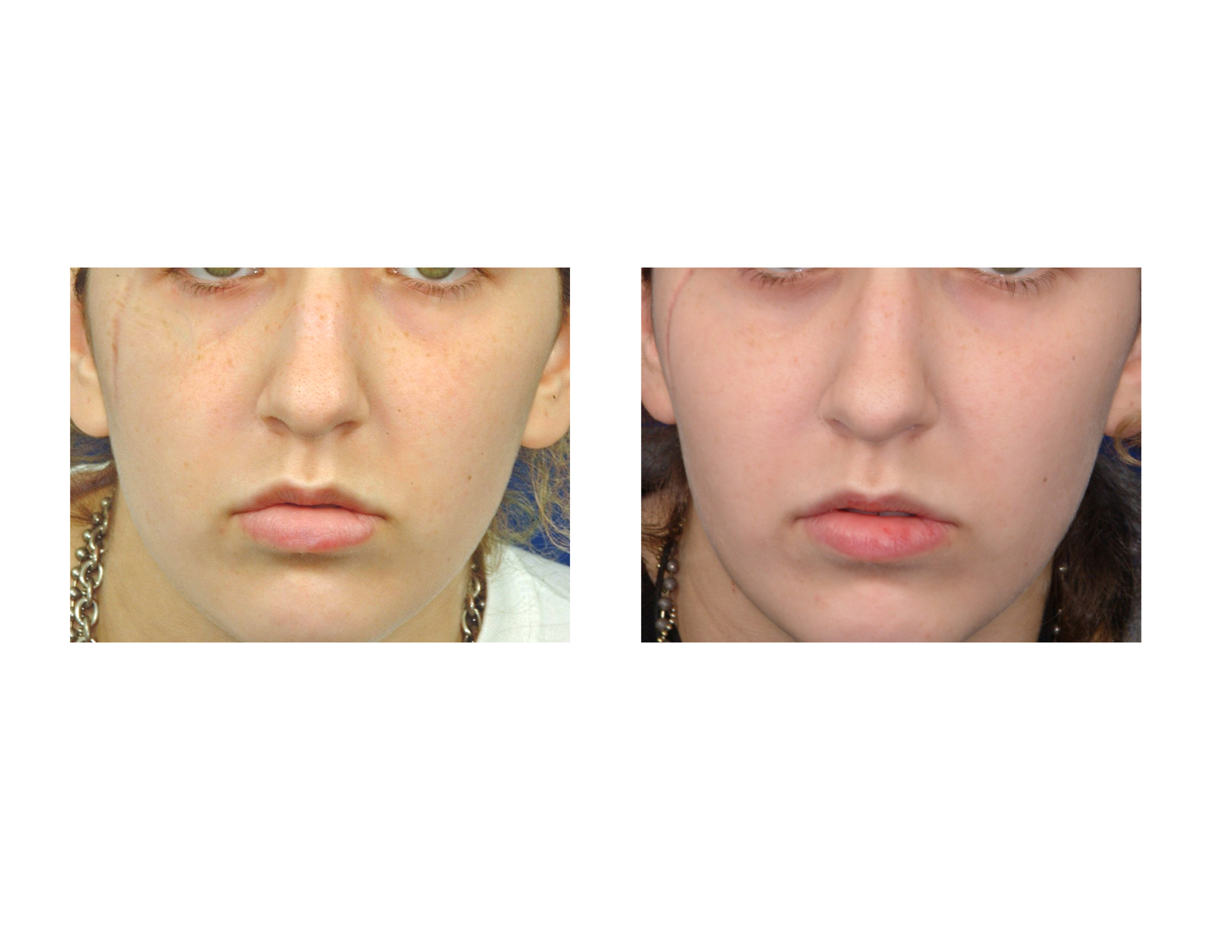 explore plastic surgery dr barry eppleydr barry eppley archives zygomatic osteotomies in cheek augmentation and cheek reduction
