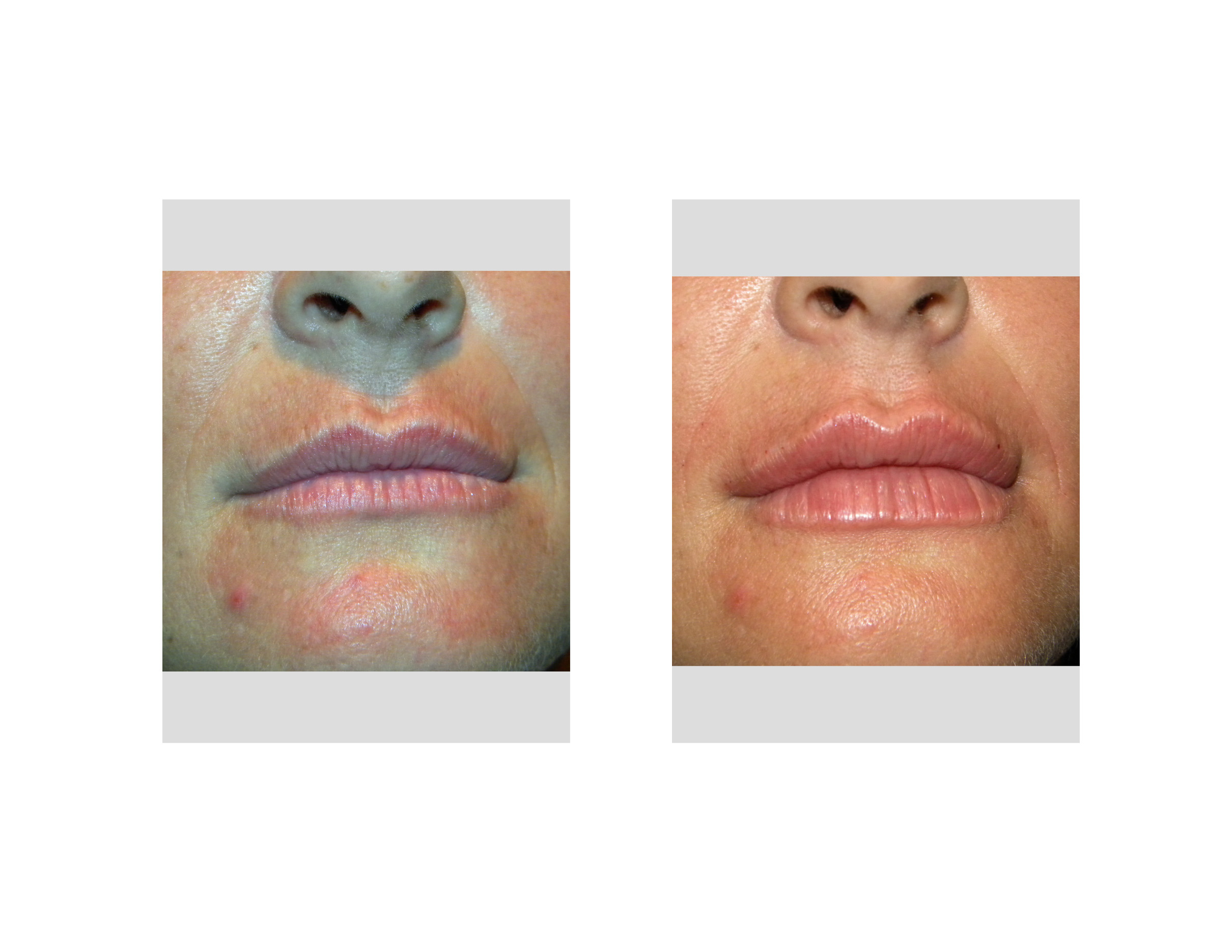 Different Shapes Of Lips Injectable Filler Lip Augmentation Dr Barry Eppley Indianapolis