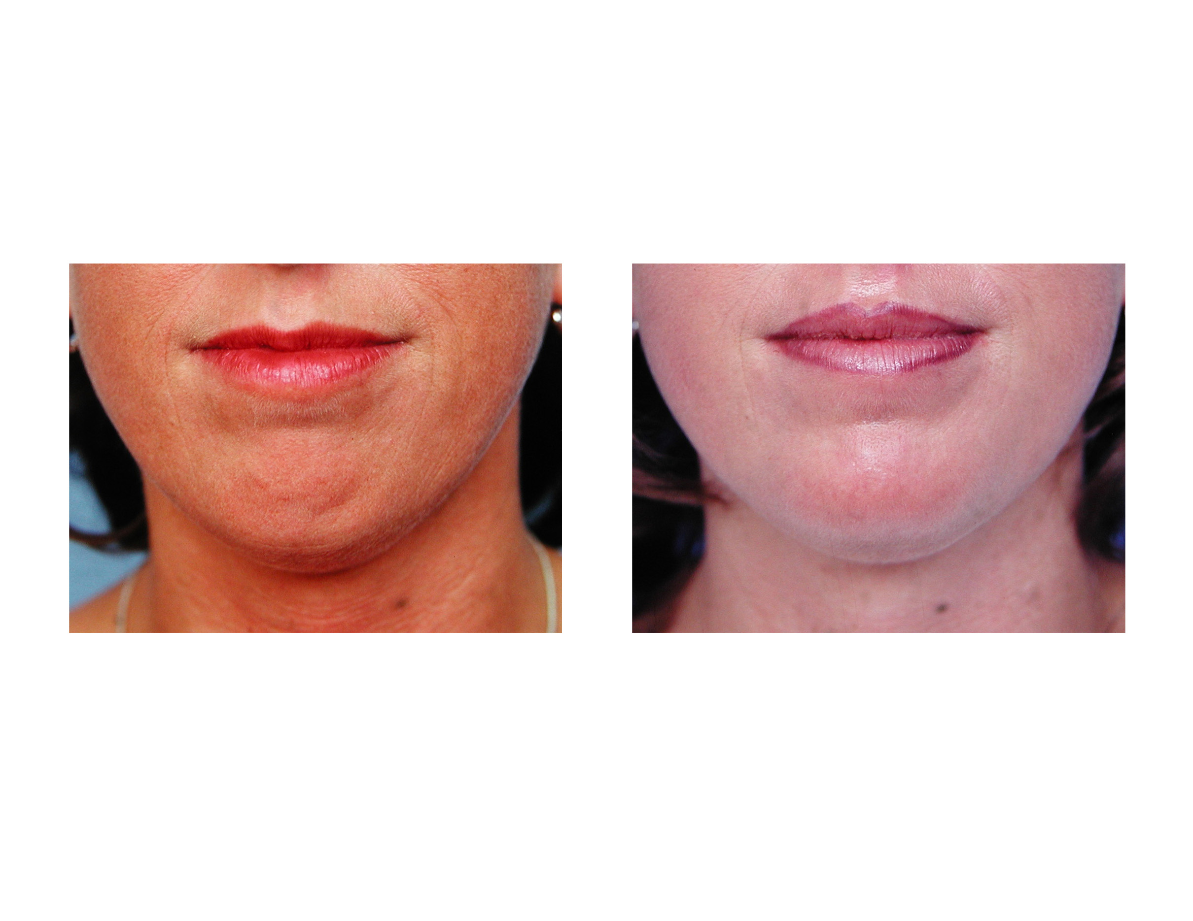 blog archivethe effects of chin augmentation on mentalis muscle