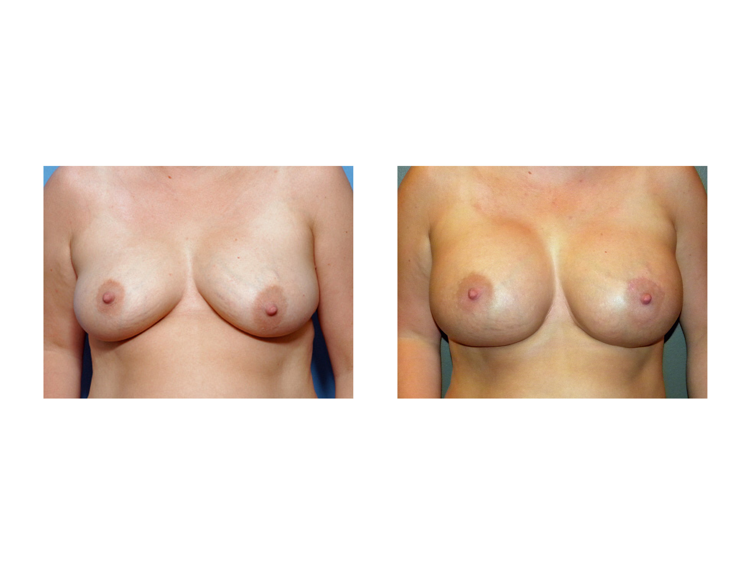 just breast implants forum