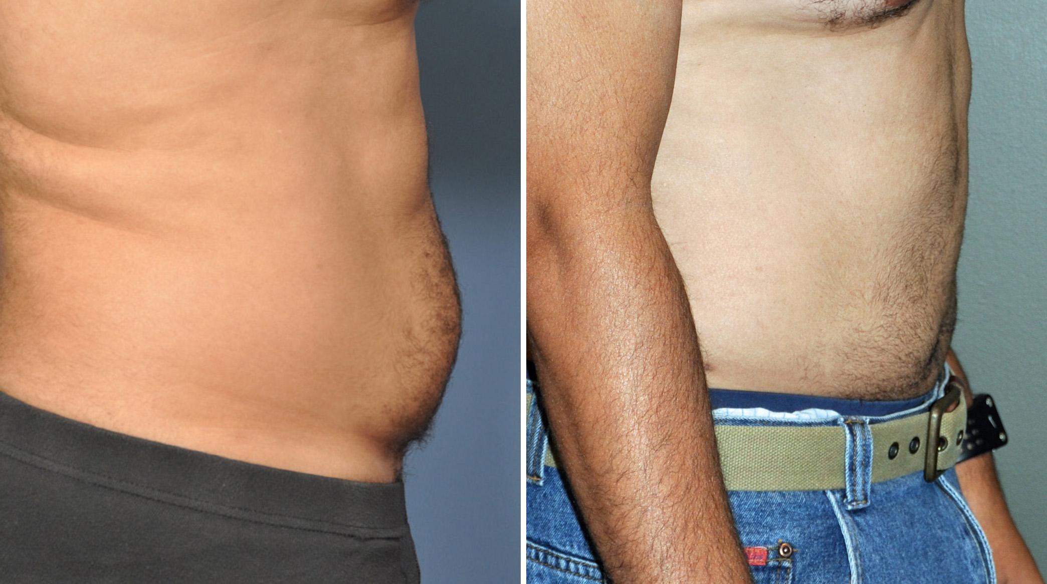 Liposuction surgery - Stock Image - M590/0350 - Science