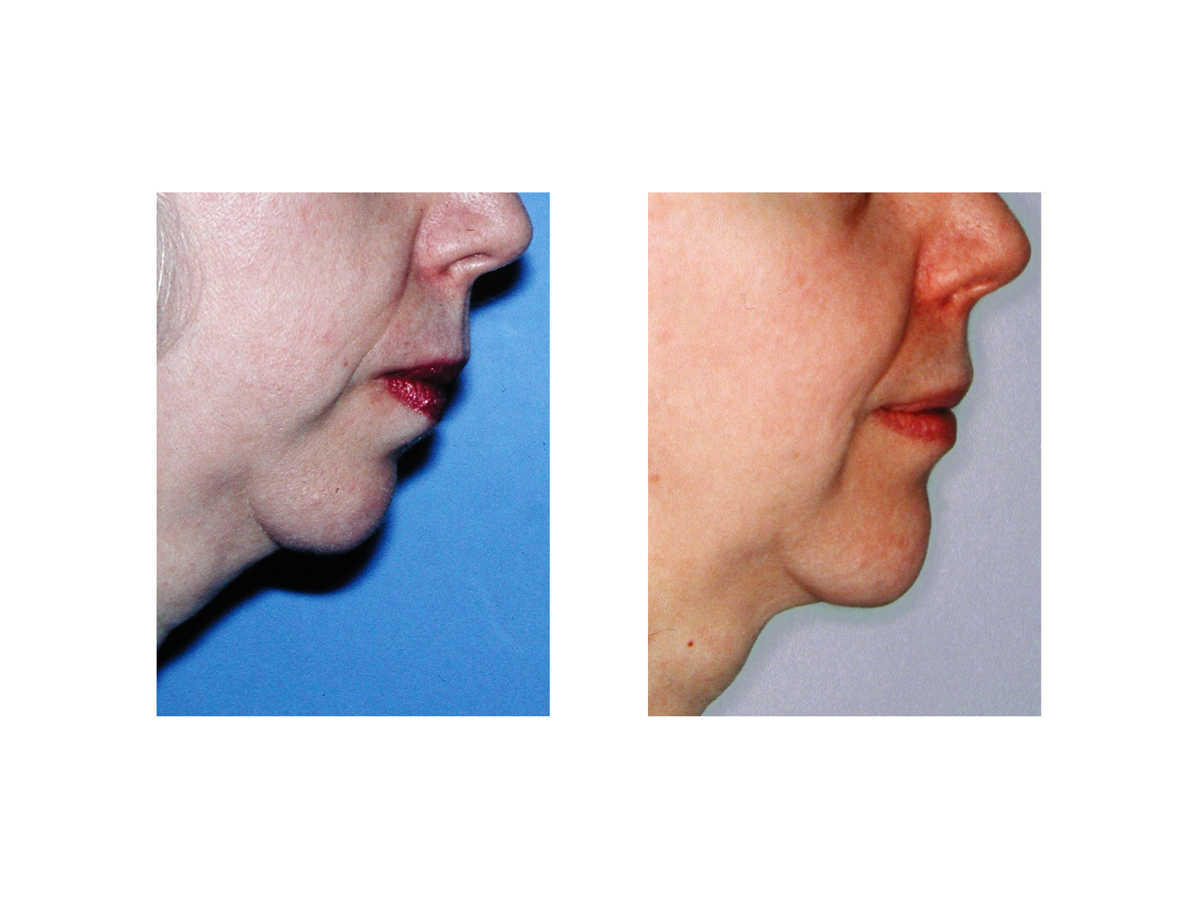 Explore Plastic Surgery Dr Barry Eppley Chin Implants | New Style for