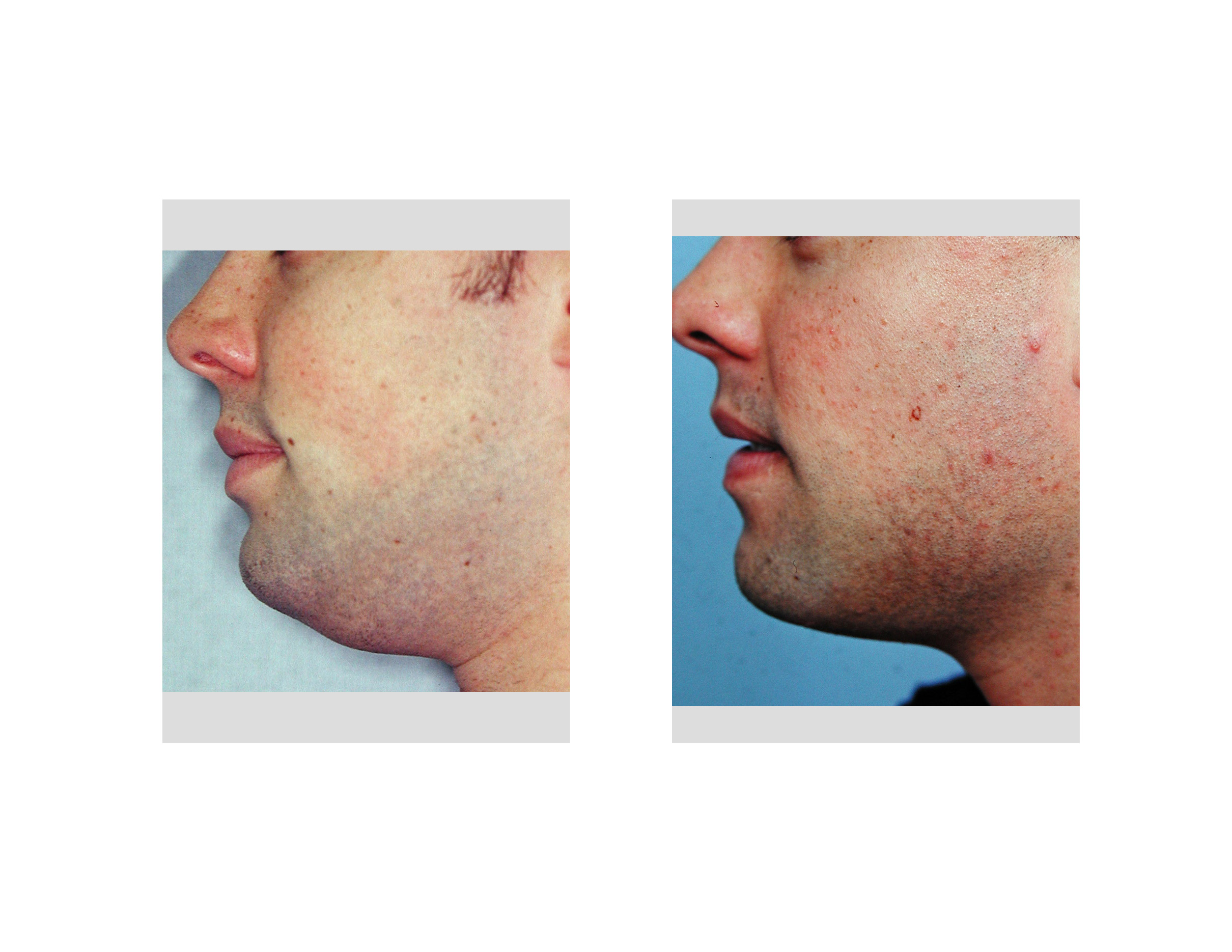 Opinion picture of facial liposuction interesting