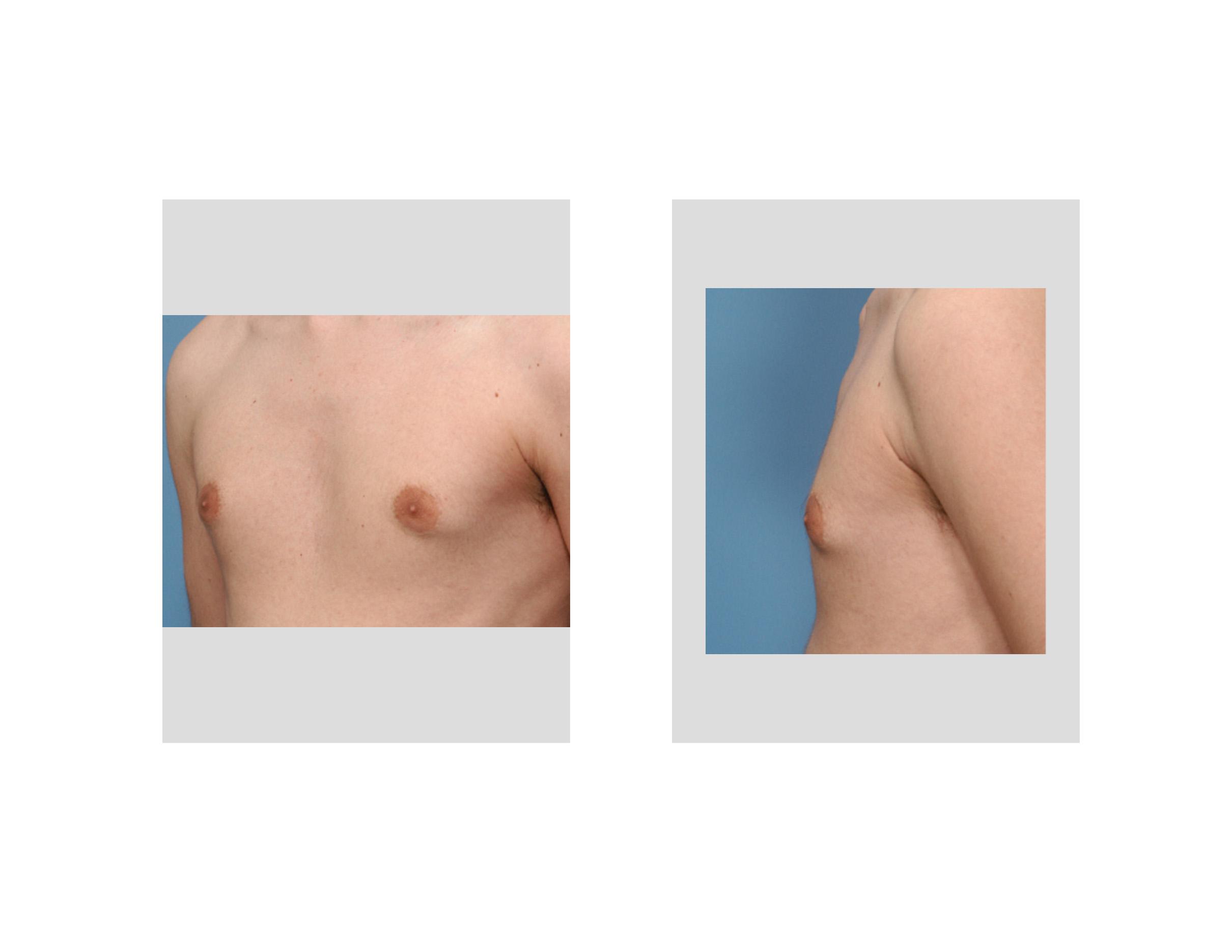 puffy nipples