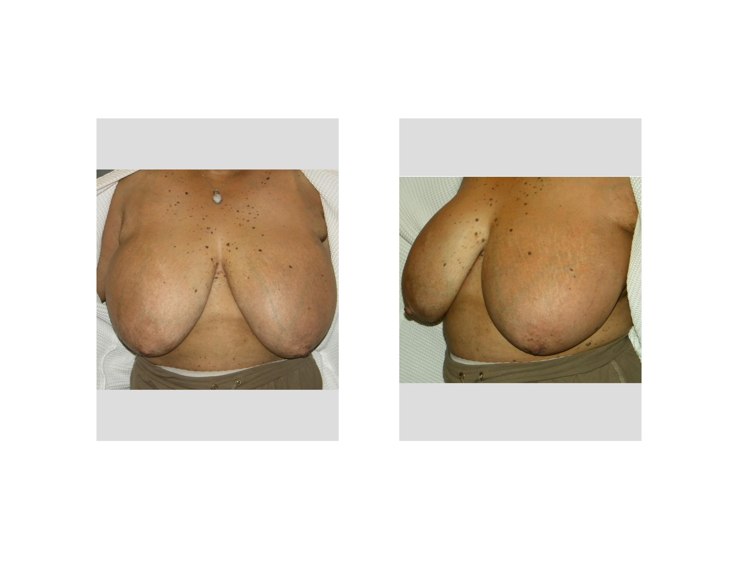 Breast Large Nipples 27