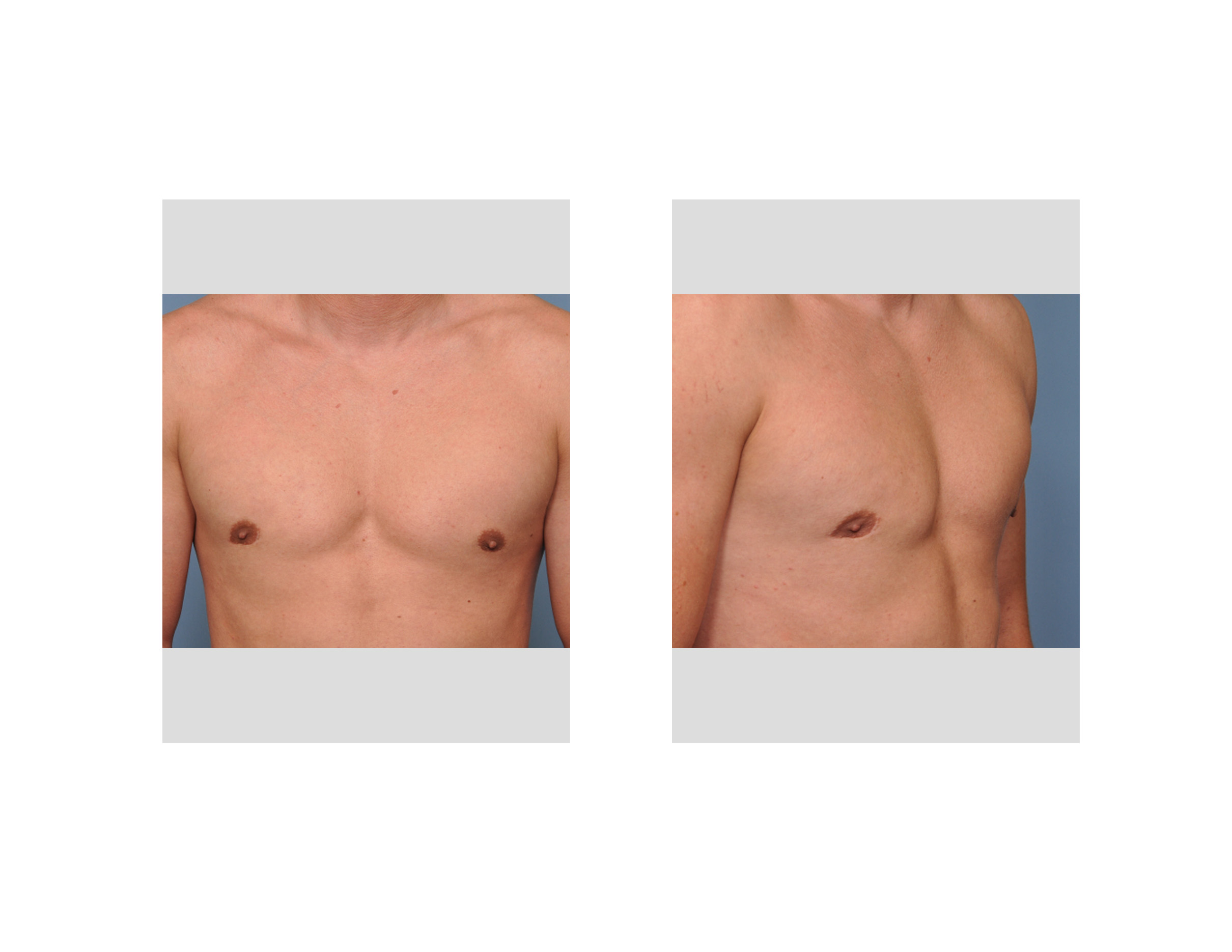 gynecomastia deformity dr barry eppley indianapolis Gynexin Bad You
