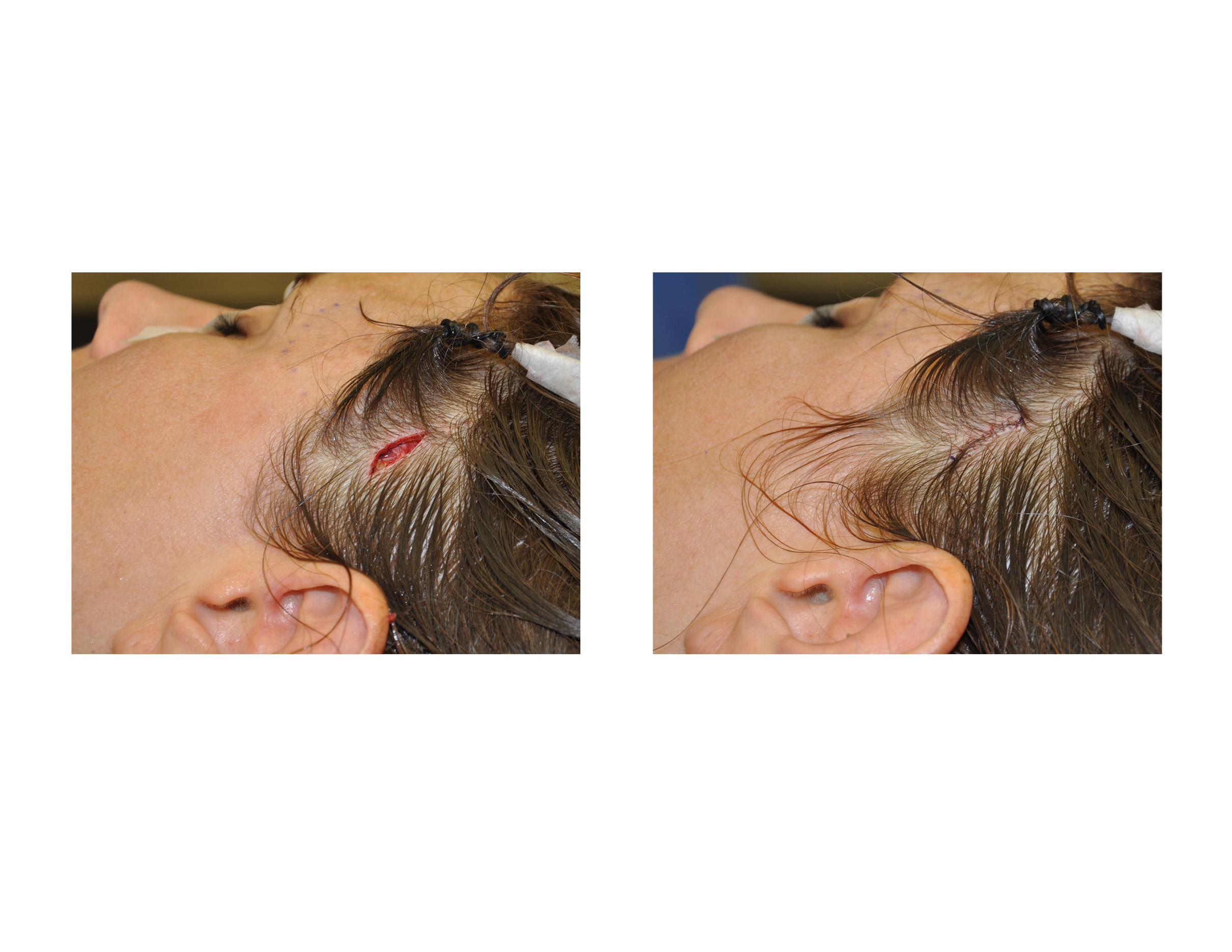 Which Surgical Procedure Uses Cold Incision And Closure For Minimally Invasive Temporal Augmentation