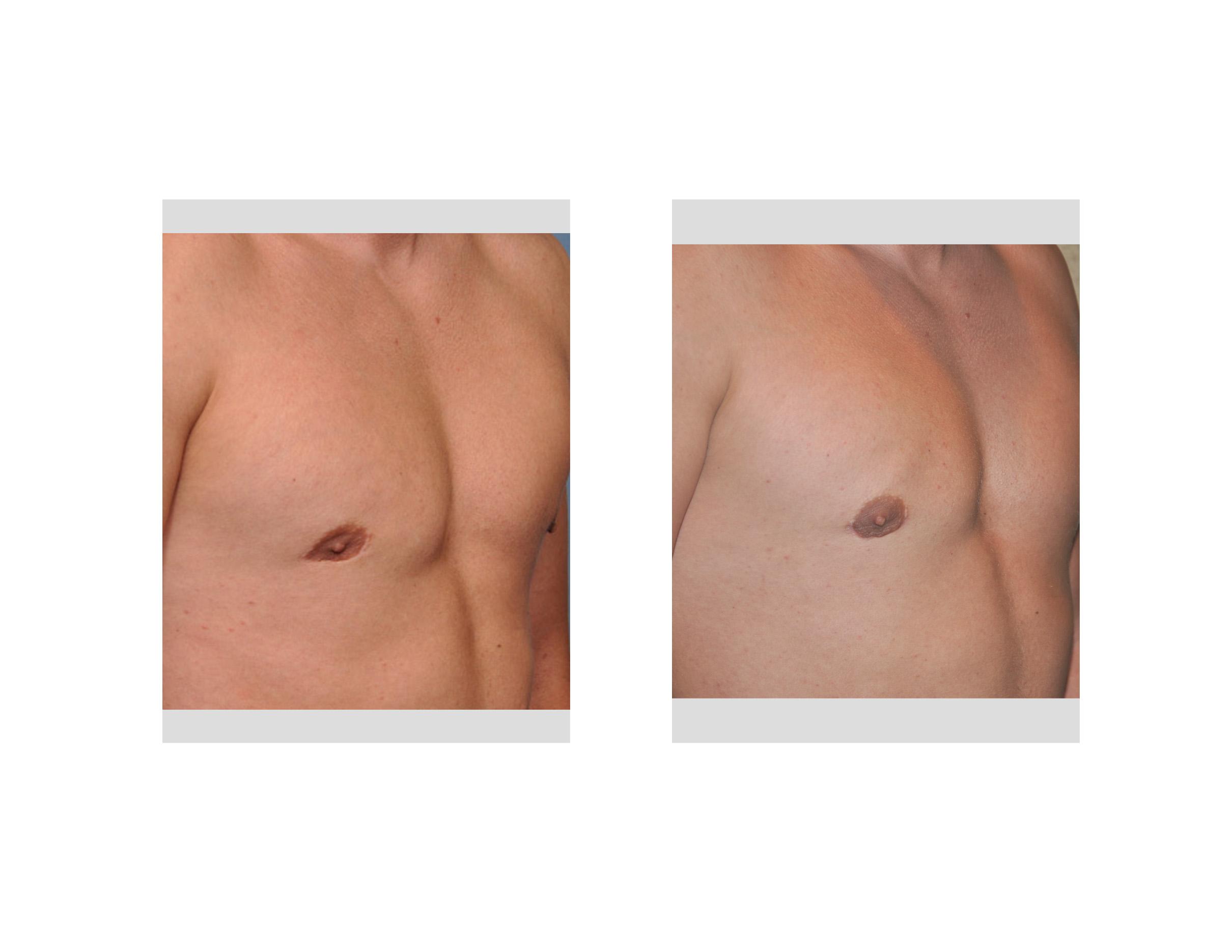 Fat Nipple 4