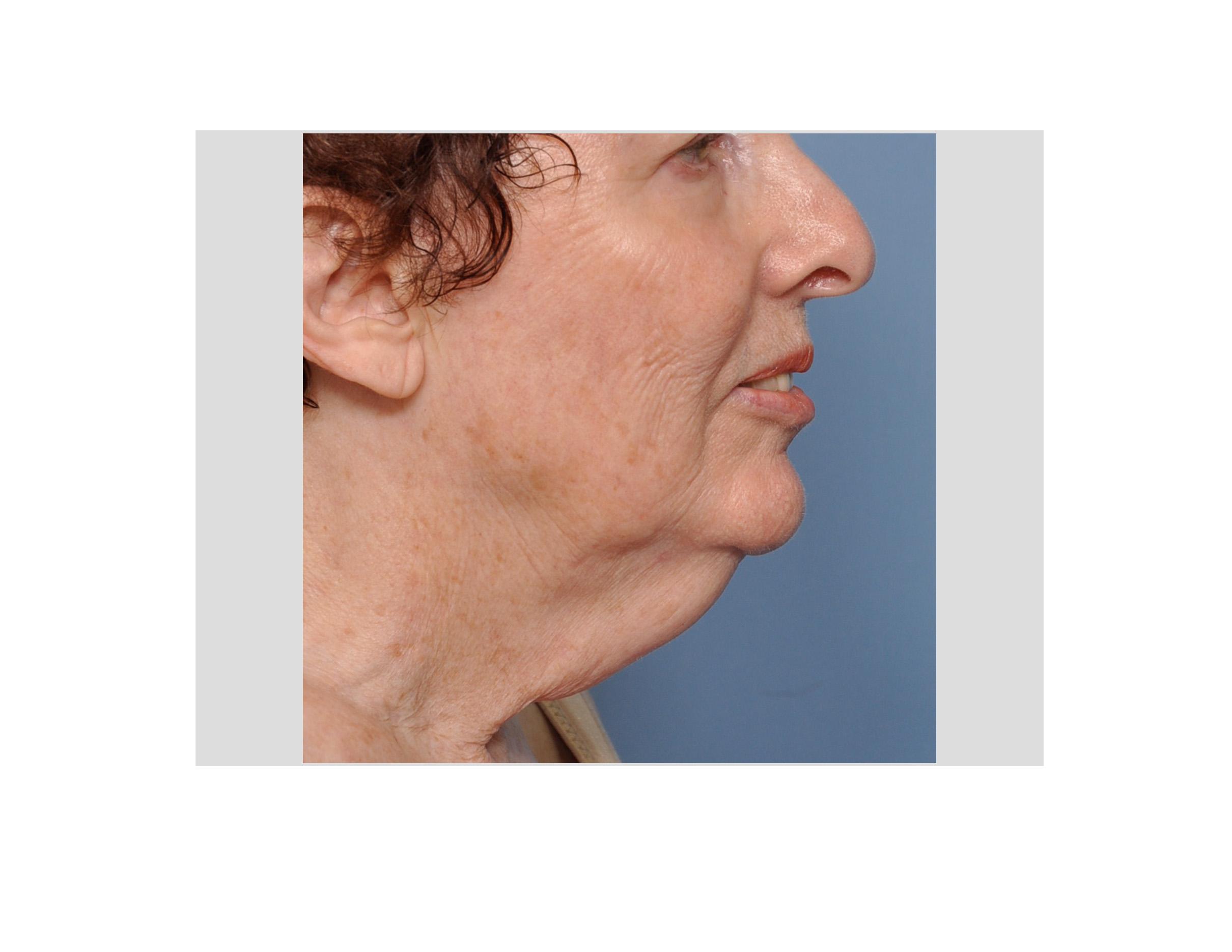 Turkey neck women
