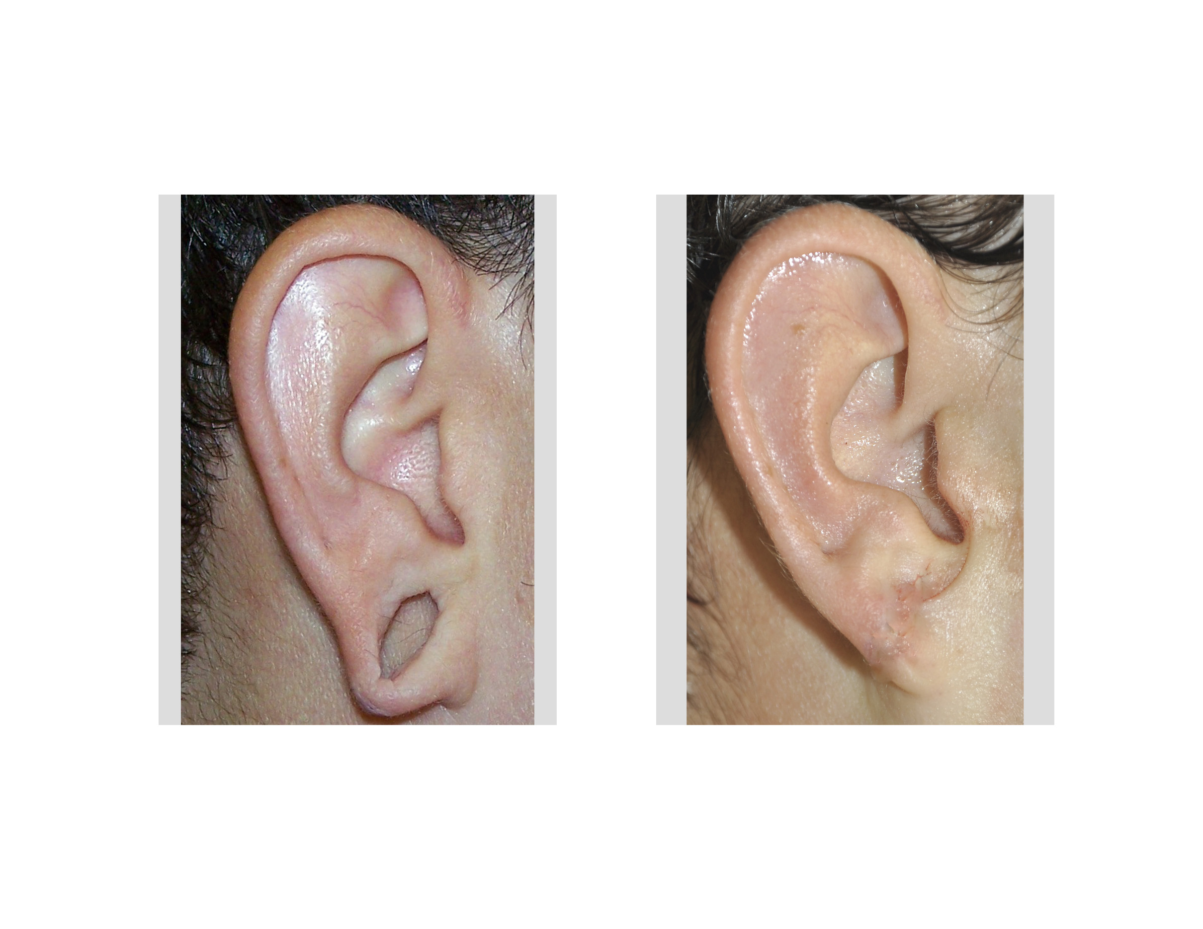 earlobe reconstruction of the gauged ear Archives -