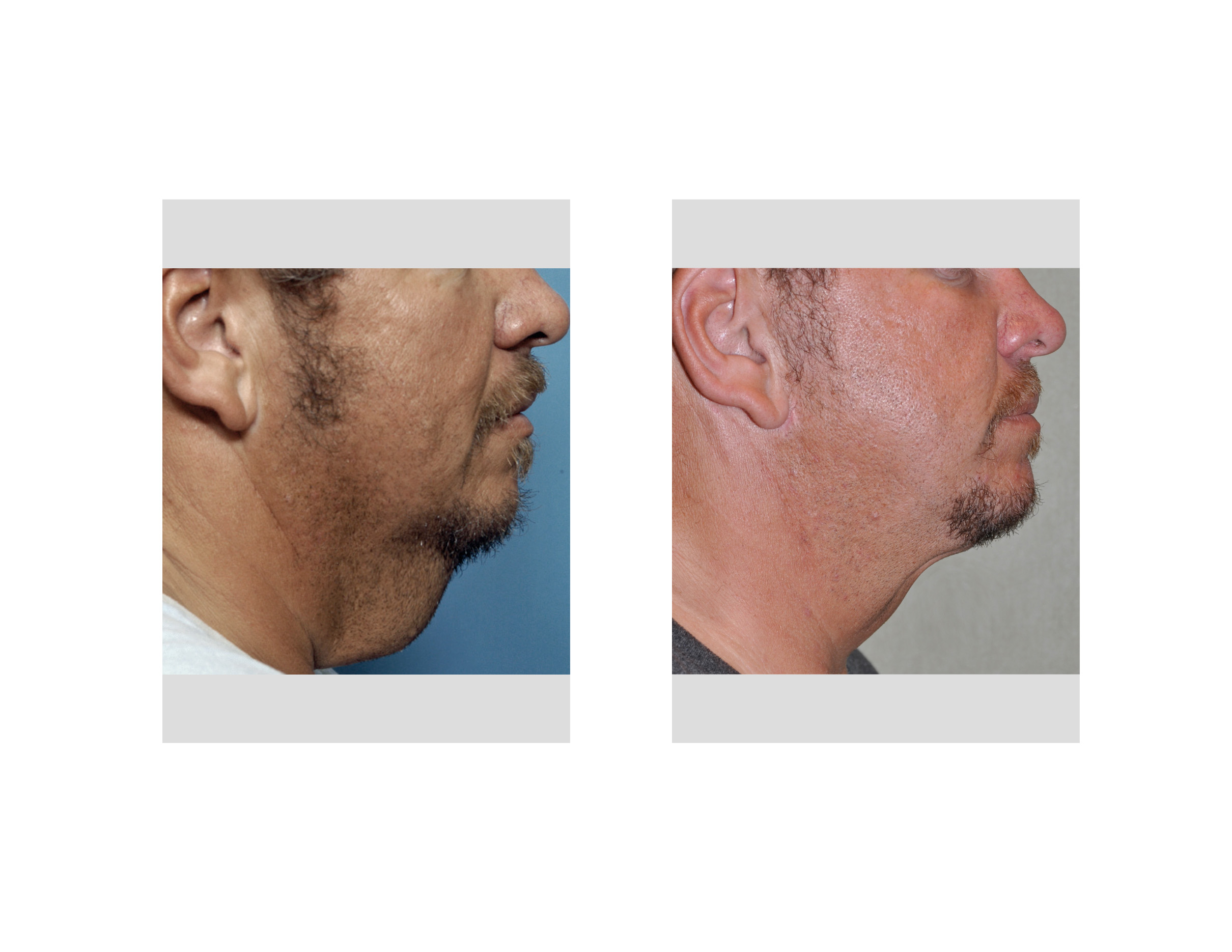 "Explore Plastic Surgery - Dr. Barry Eppley "" plastic surgery"