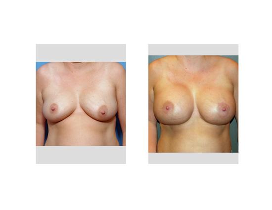 naked women large labia