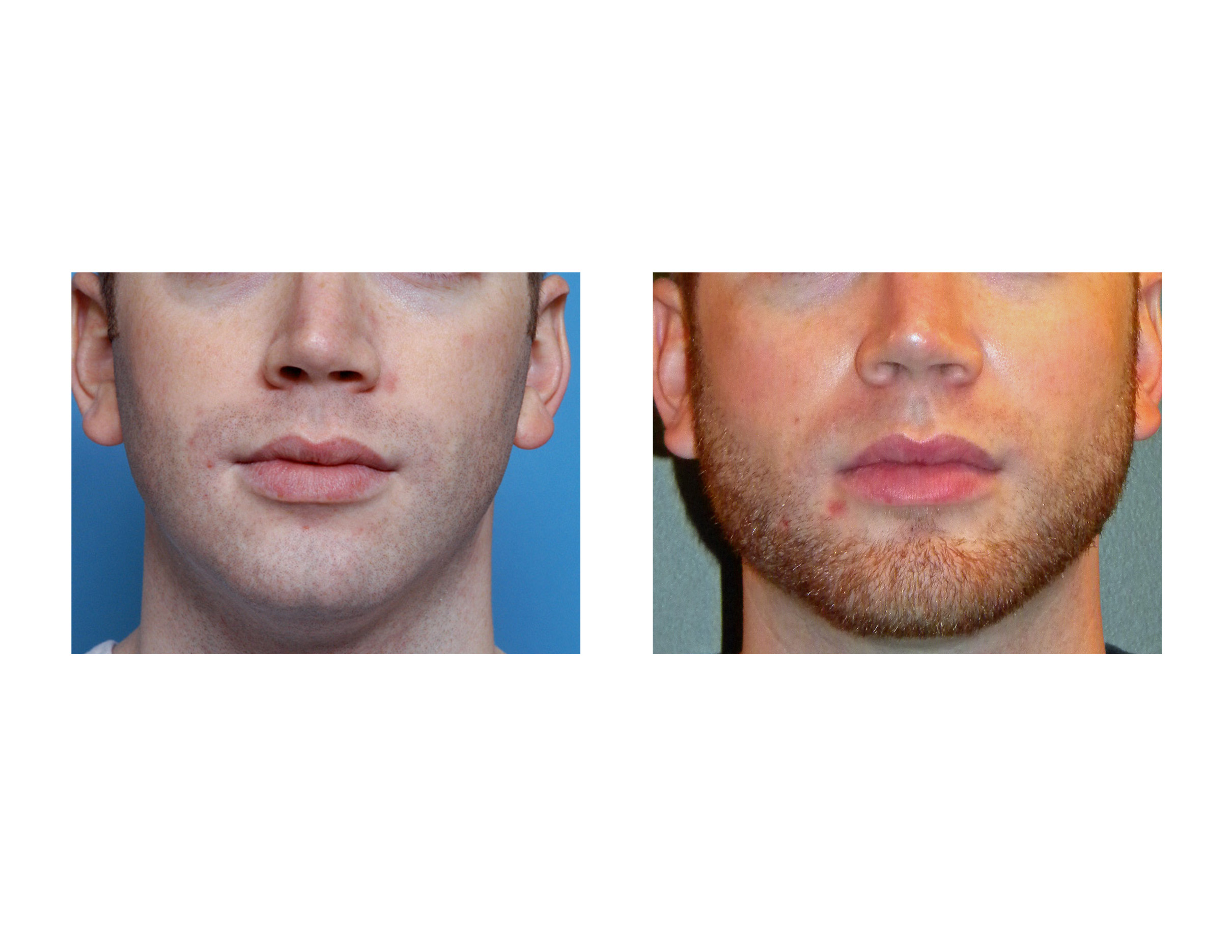 [Image: chin-and-jaw-angle-implants-dr-barry-epp...apolis.jpg]