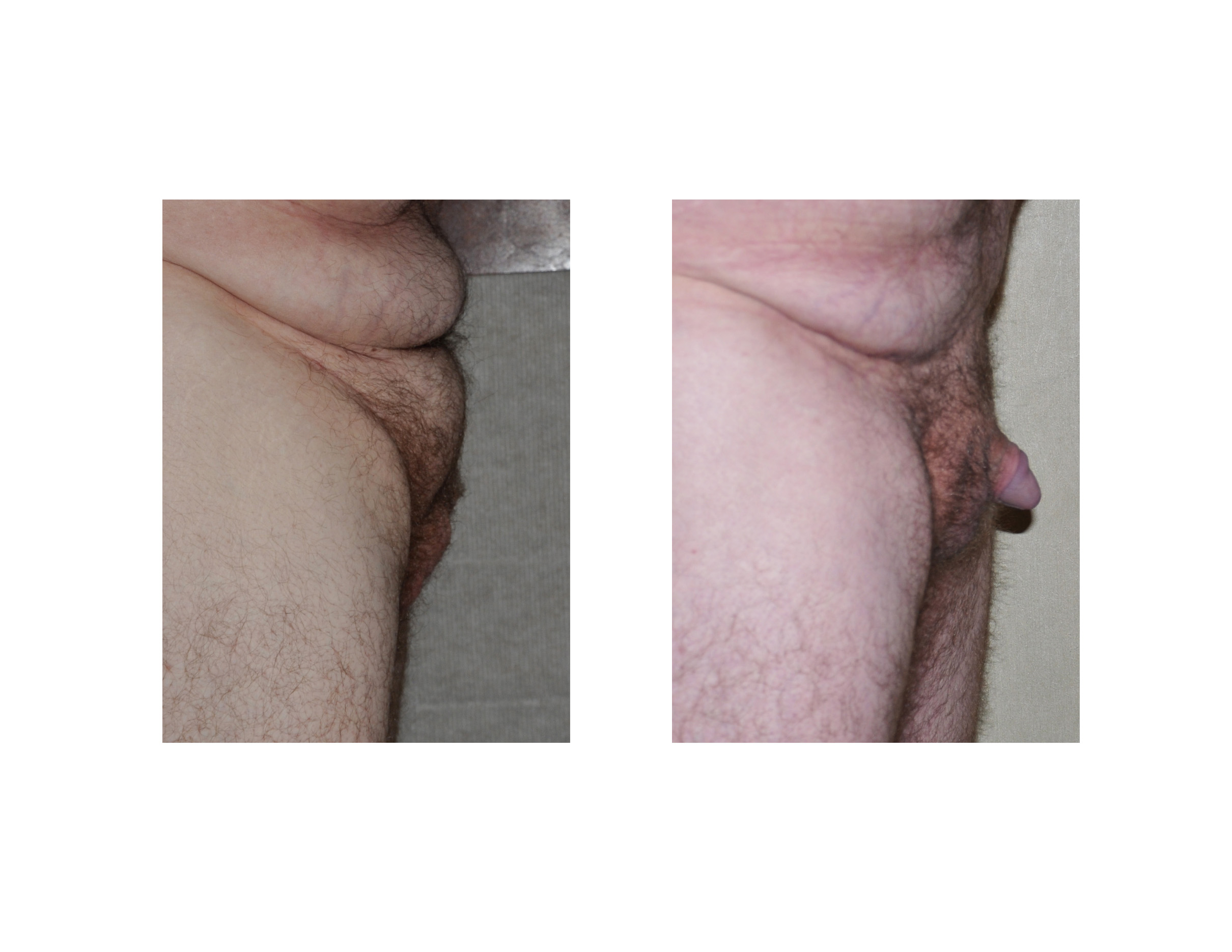 Buried penis problem buried penis treatment explained