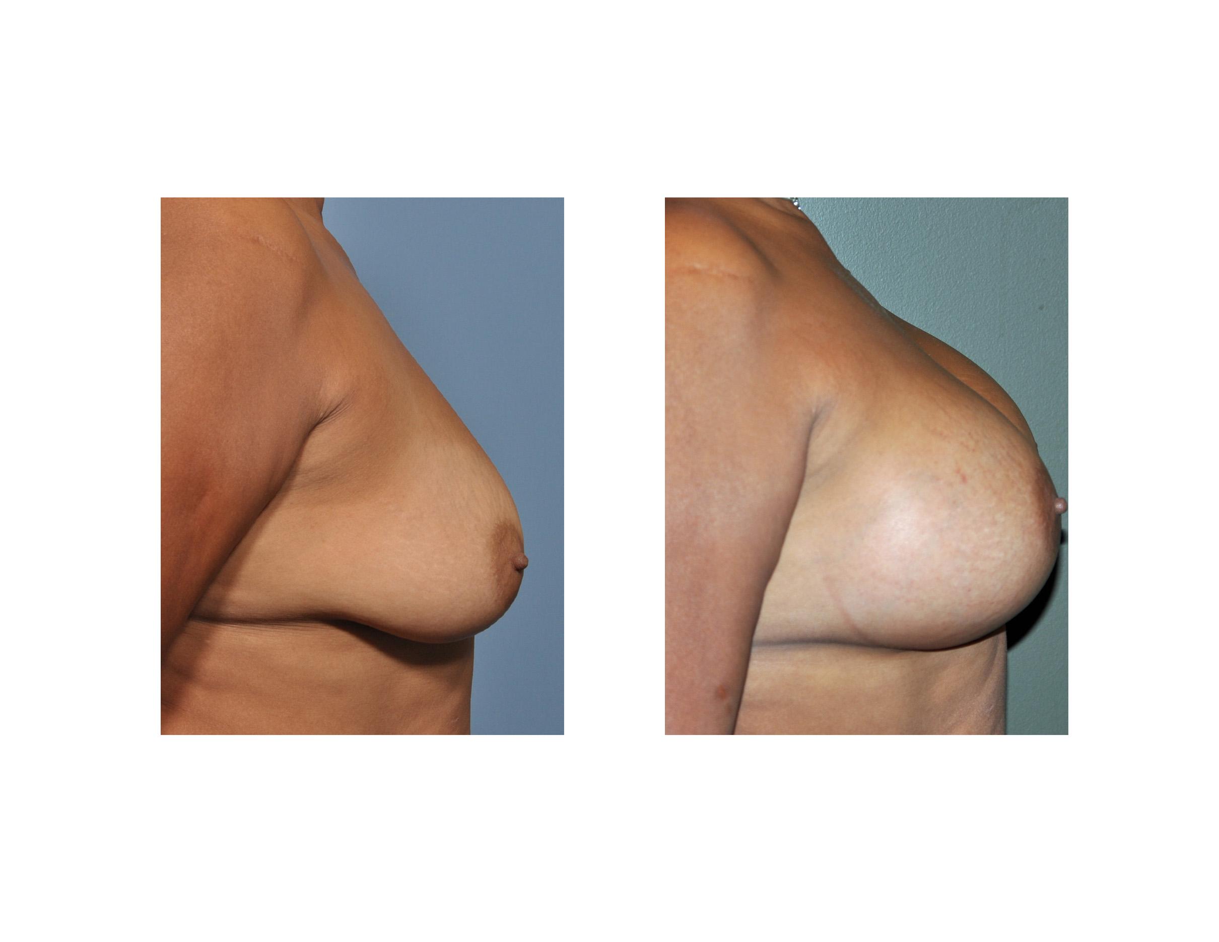 Breast augmentation for older women