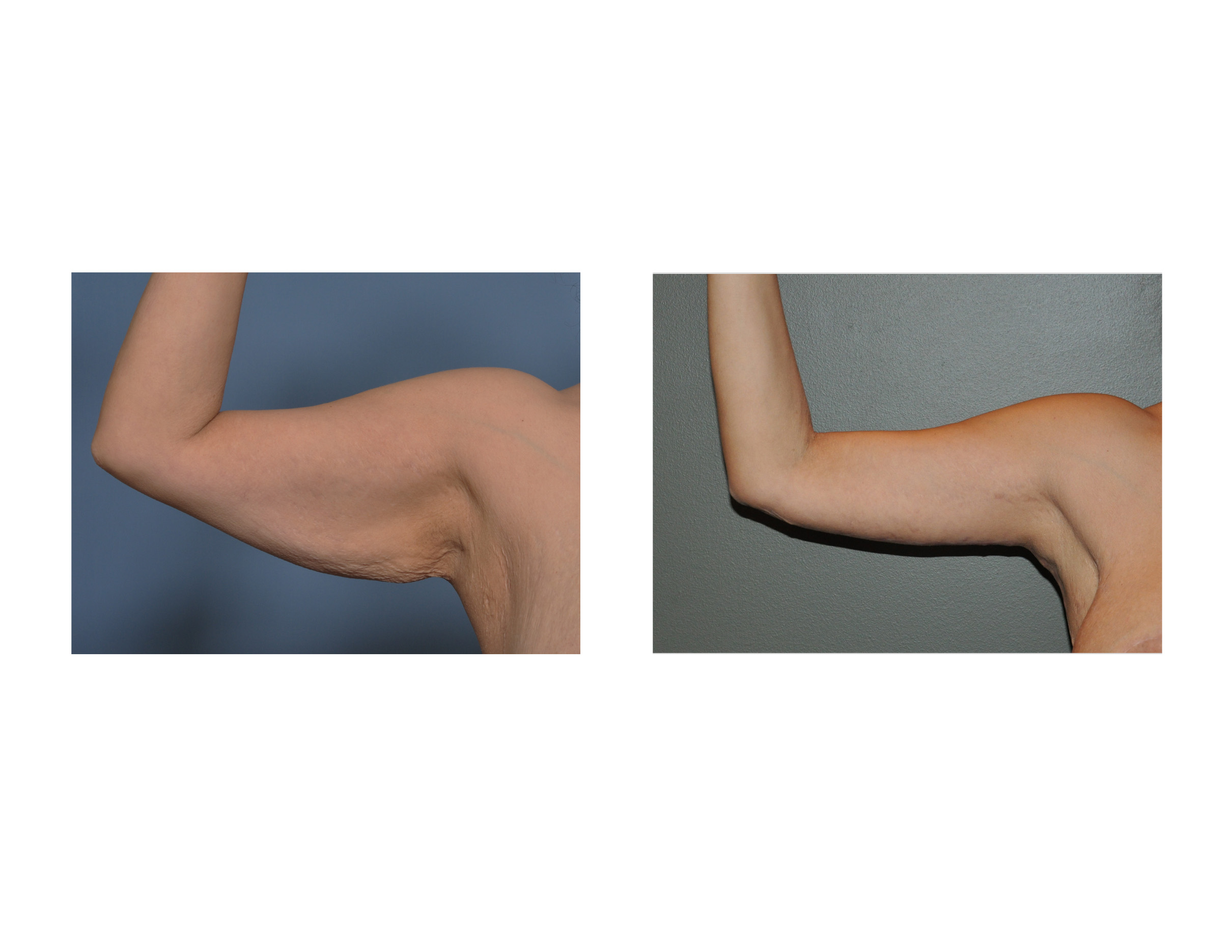 Armpit Fat Removal 24