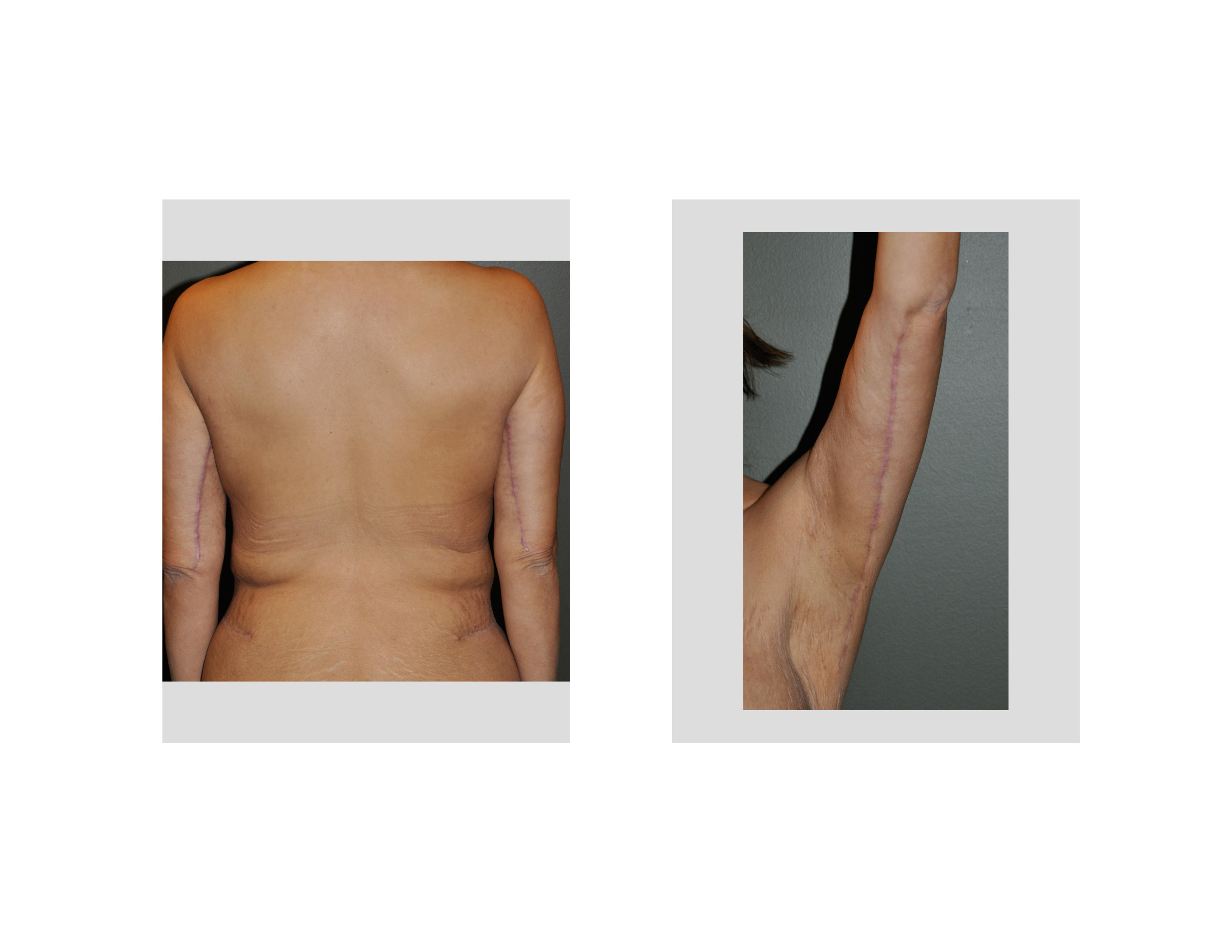 Scars From Upper Arm Lifts : Arm lift archives page of
