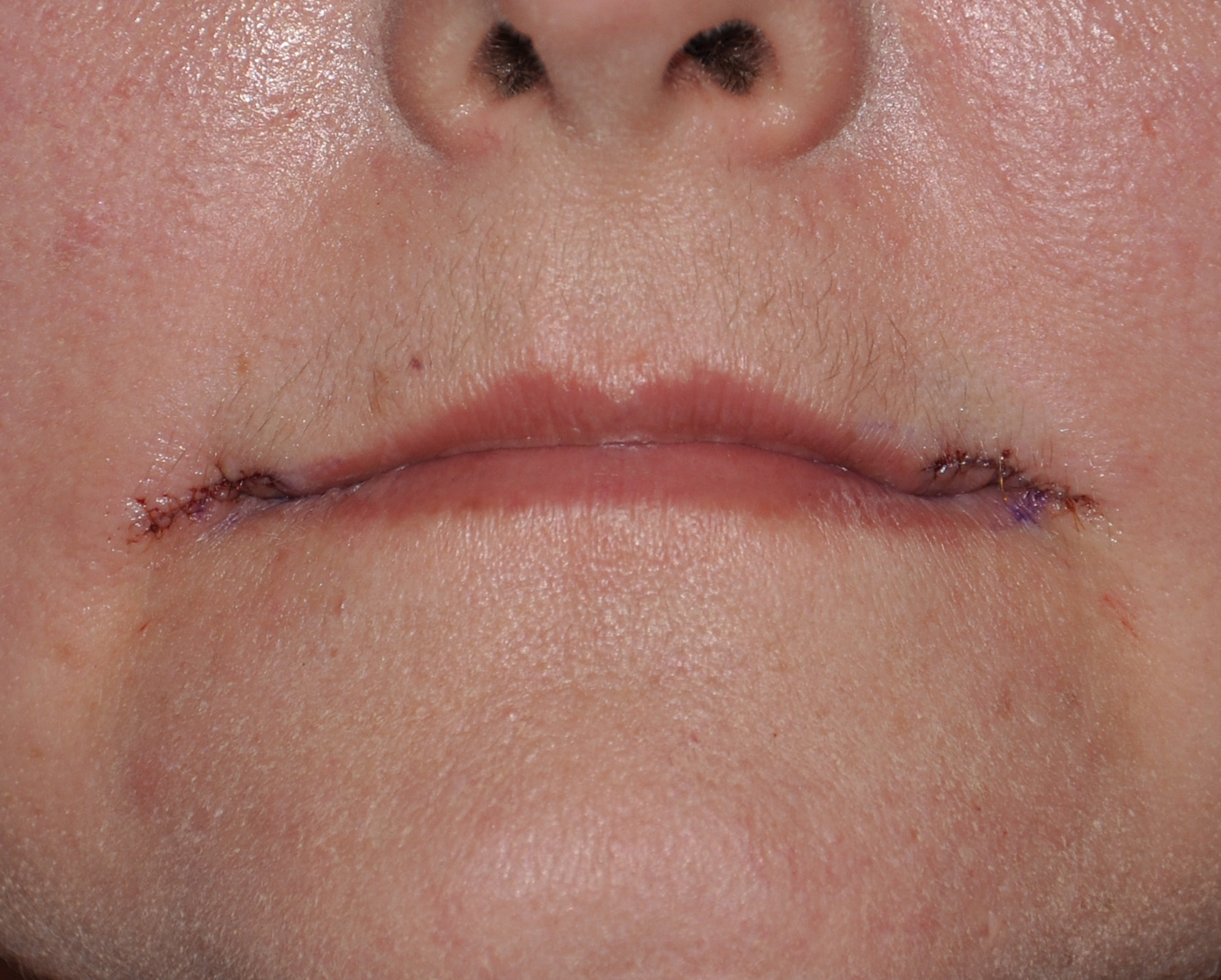 corner of the mouth lift Archives -