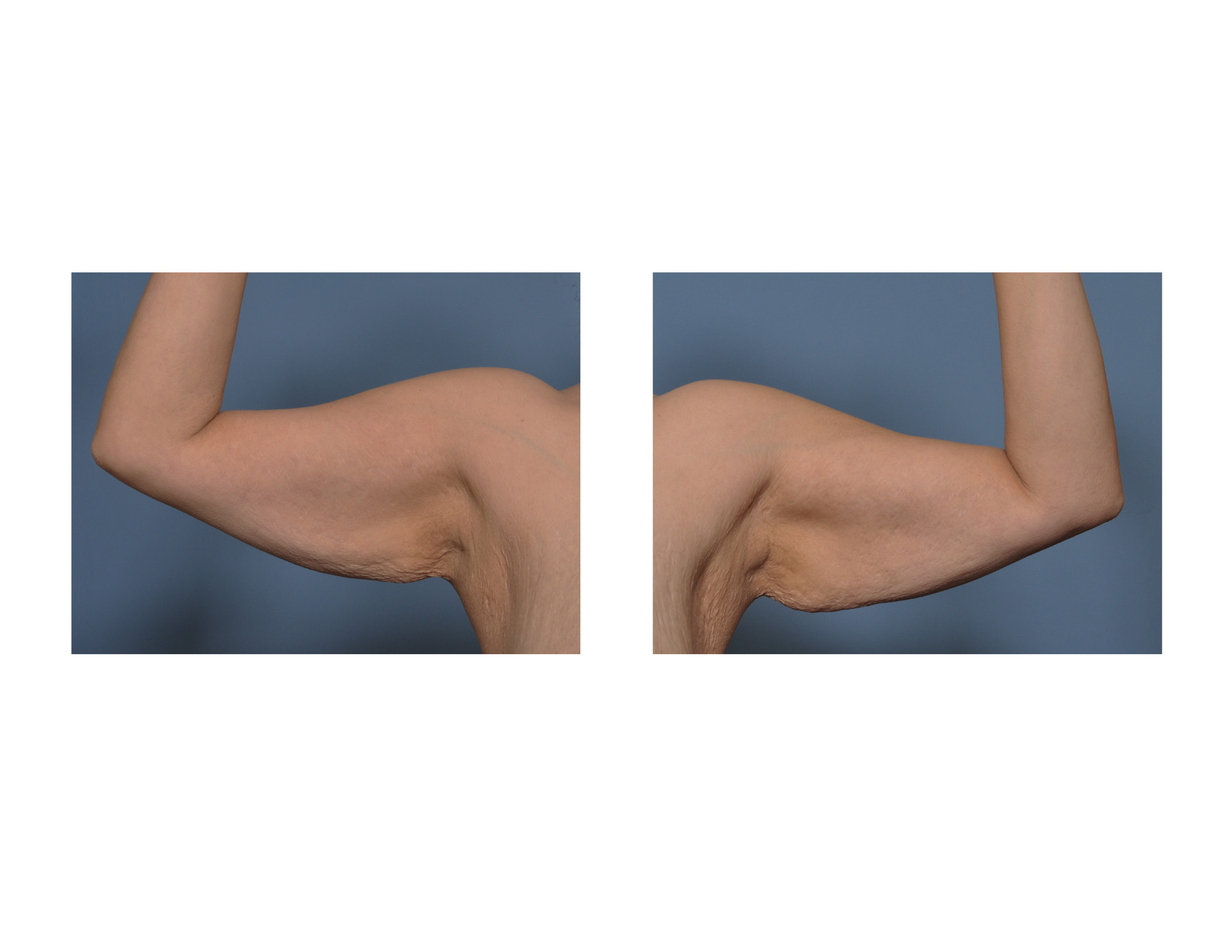 Saggy Arms After Bariatric Surgery Dr Barry Eppley Indianapolis