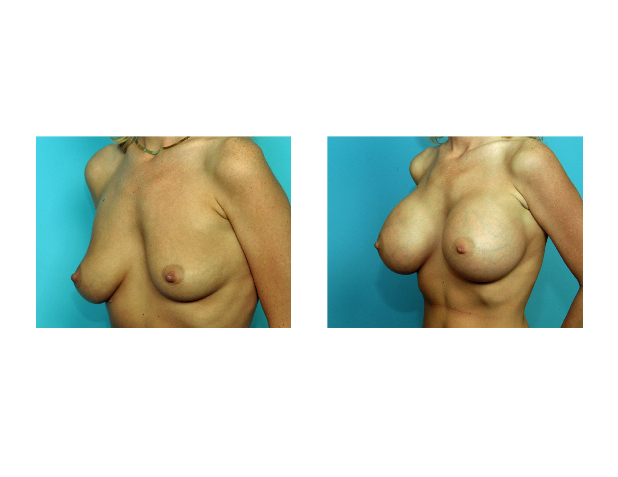 Breast Reduction - The Problem with Large Breasts