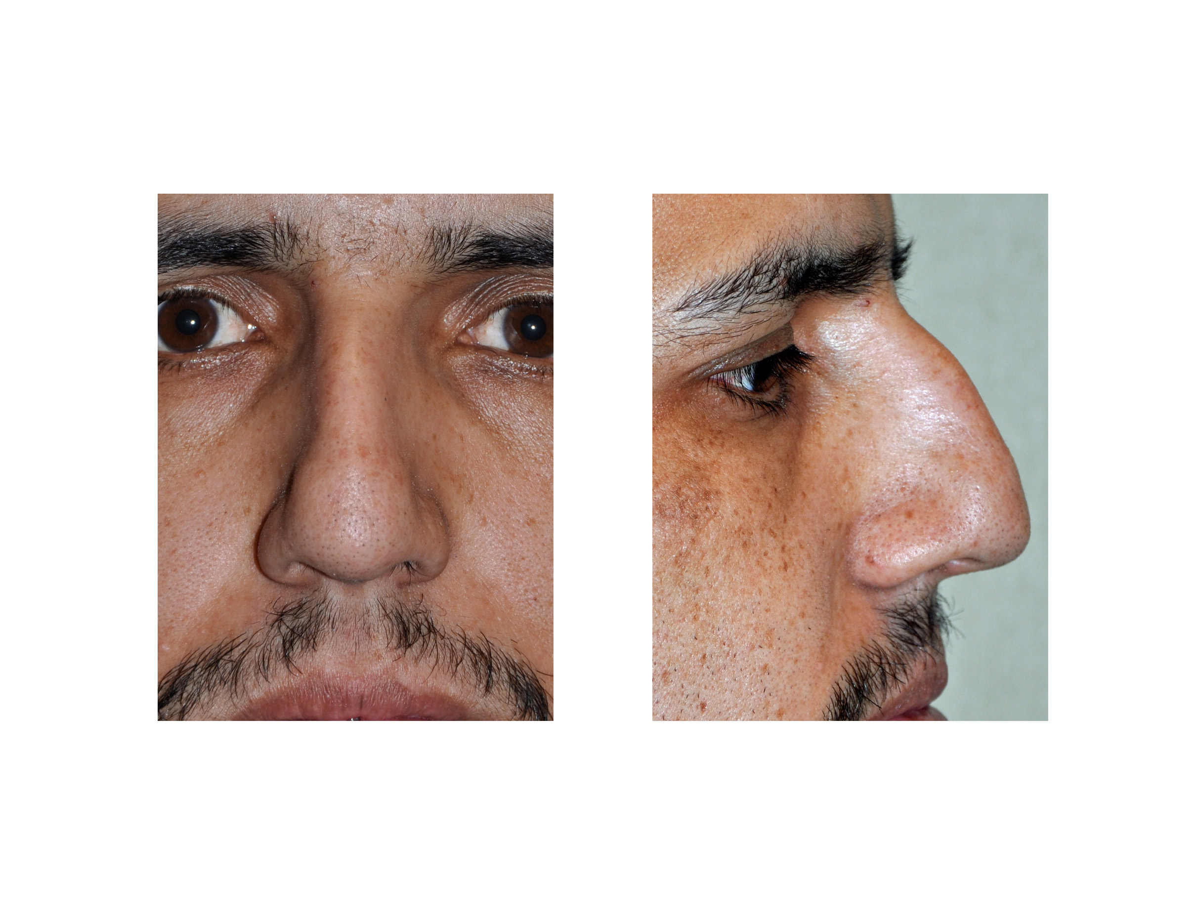 large hump reduction in rhinoplasty archives
