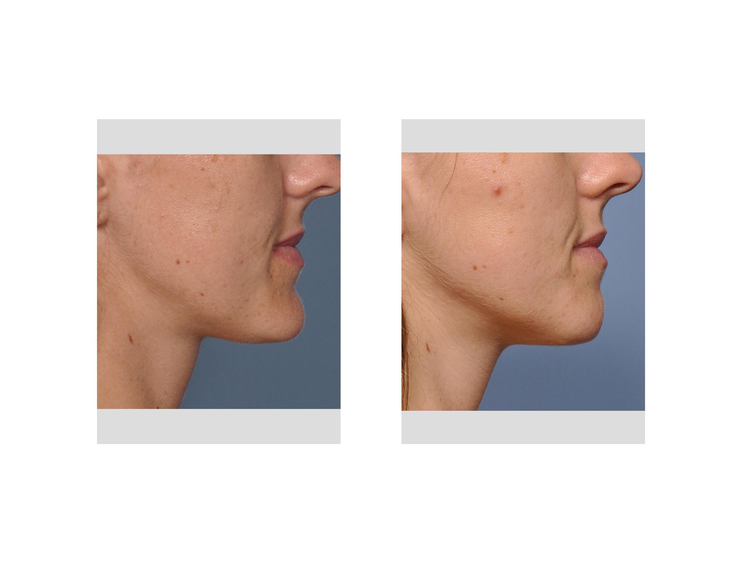 Case Study Female Submental Chin Reduction - Explore -7943