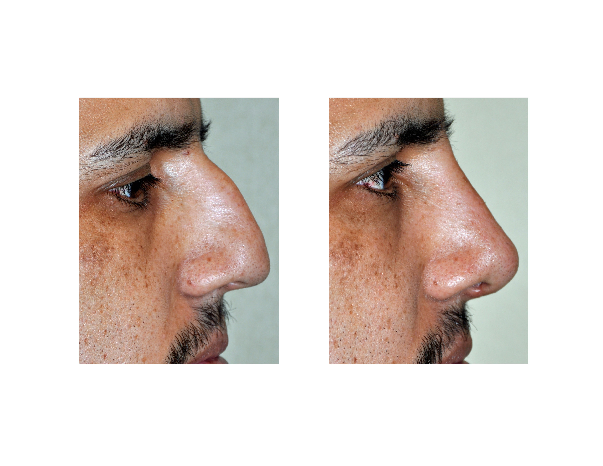 Correction Of The Roman Nose Can Produce Some Of The Most Dramatic Visual  Changes In Rhinoplasty Done Through An Open Approach, Aplete  Septorhinoplasty
