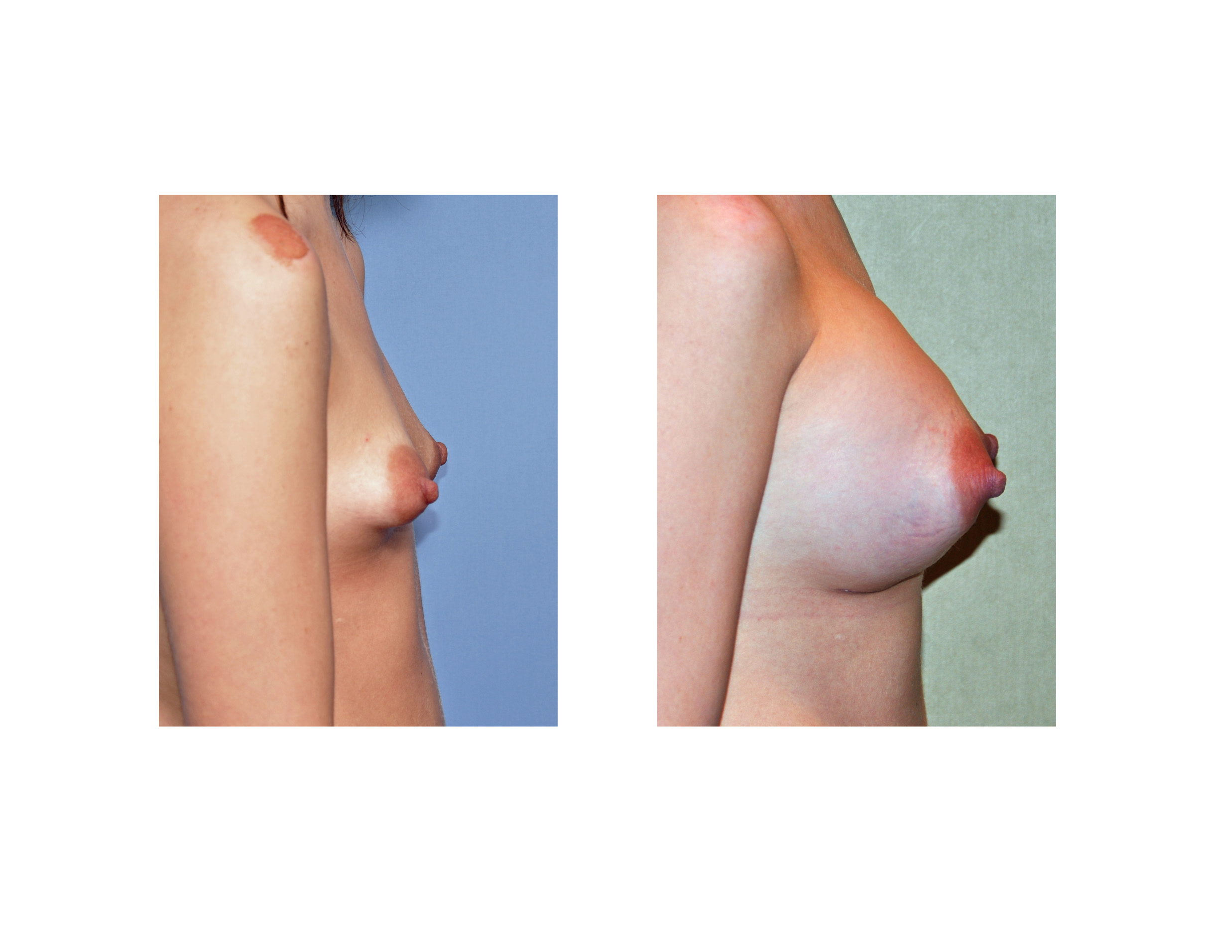 Pics Of Light Areolas