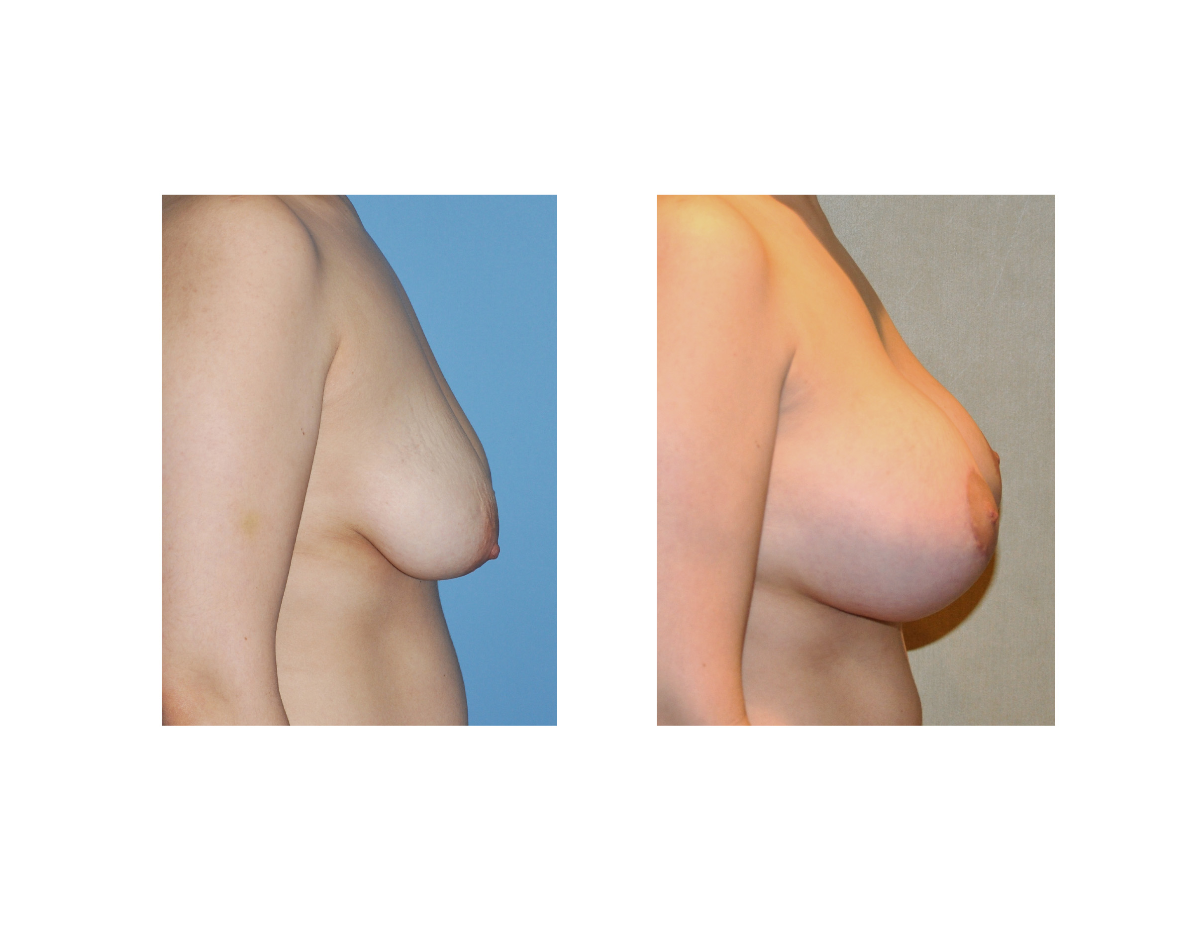 Breast Lift Before & After Photos ASPS
