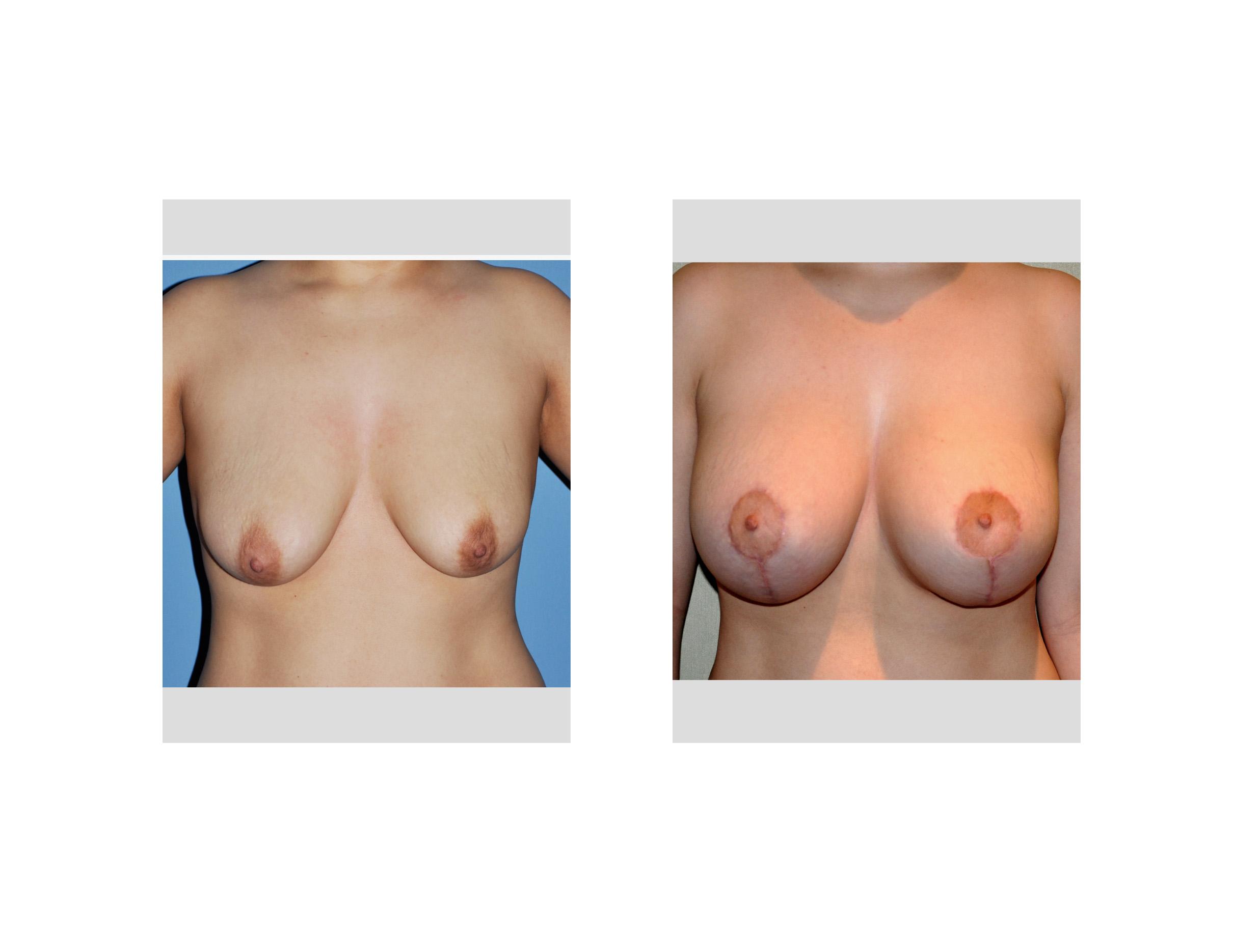 Scar Revision Surgery - Scar Repair - iEnhancecom
