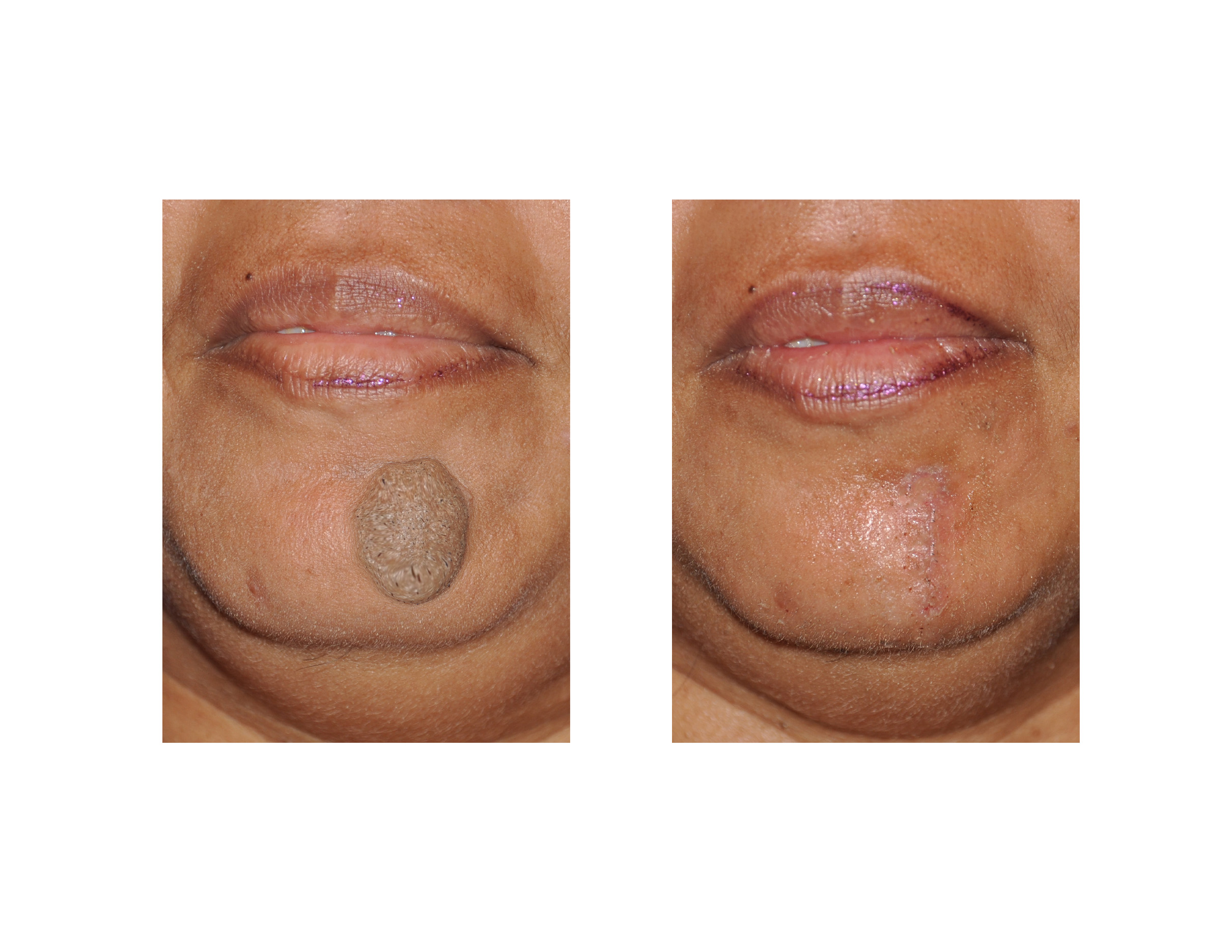Chin Mole Removal Archives