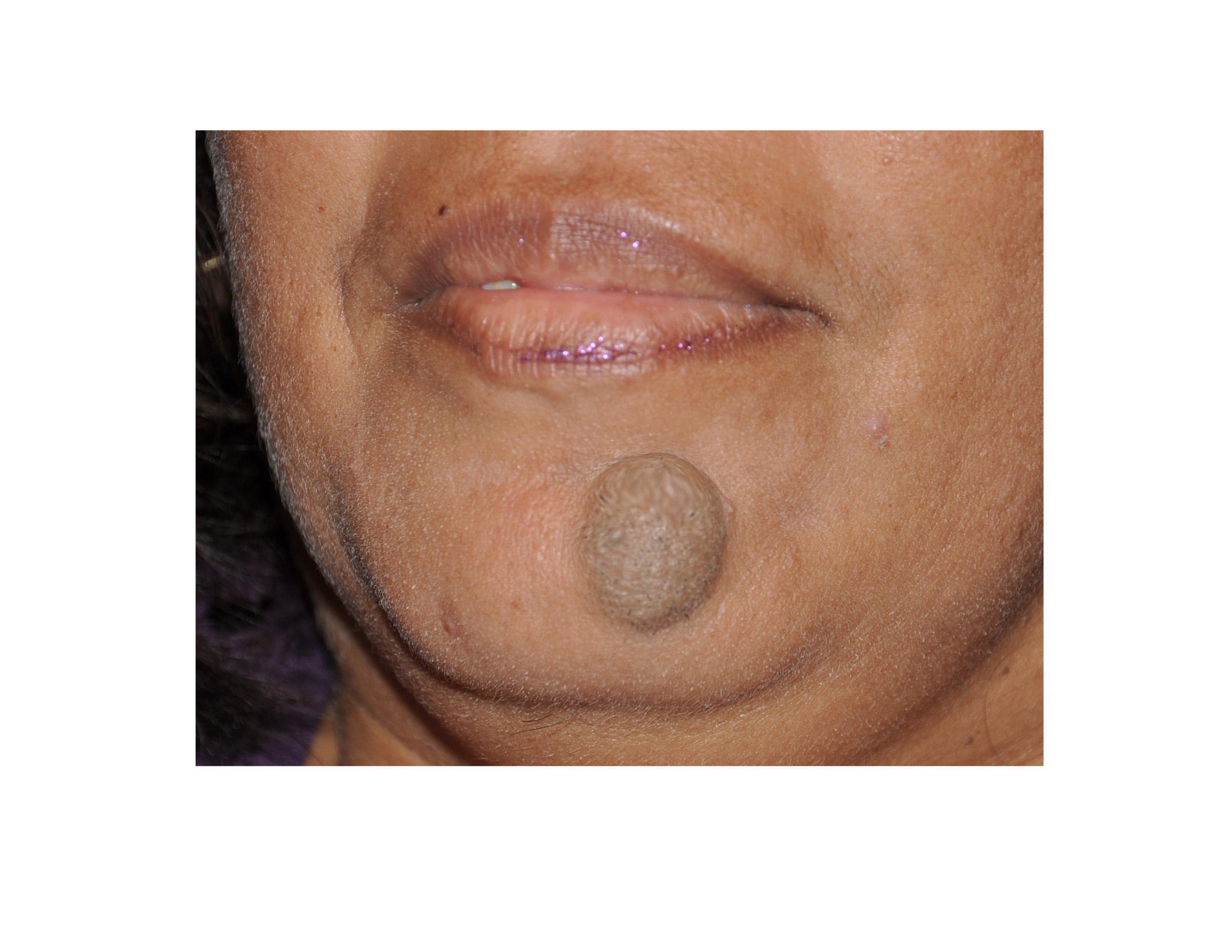 Picture of a large facial mole